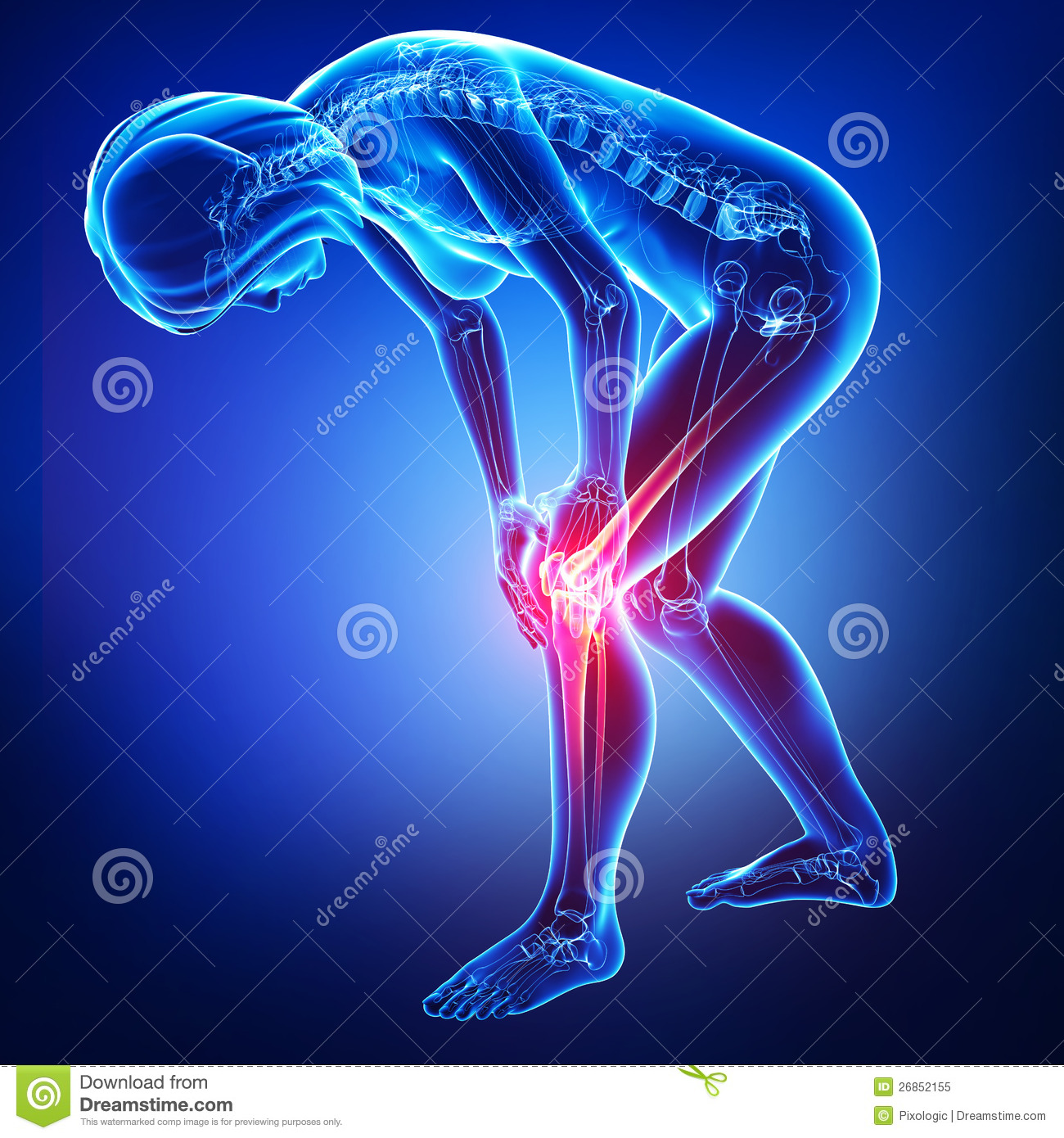 Download Female Knee And Joints Pain  In Blue Stock Illustration - Illustration of ray, male: 26852155
