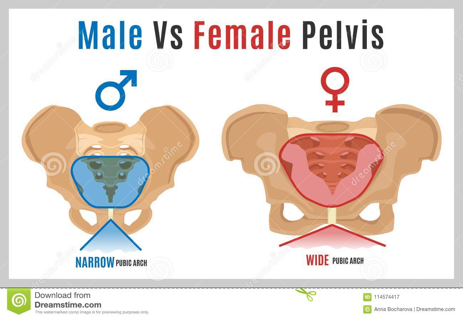 Pelvis narrow anatomically