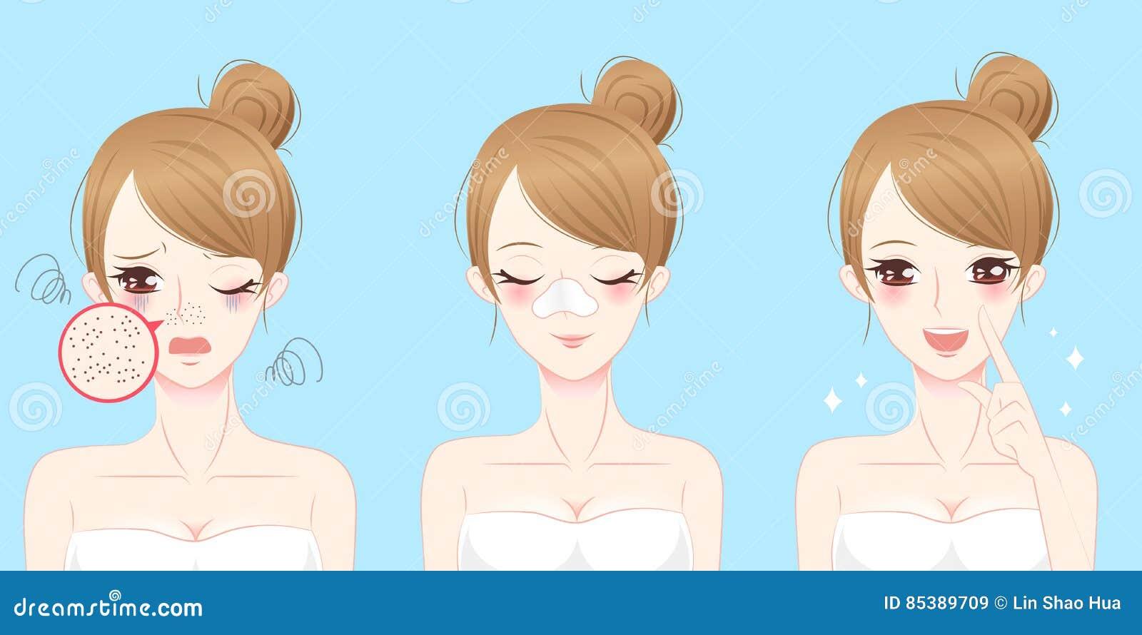 Femme avec le problème d acné