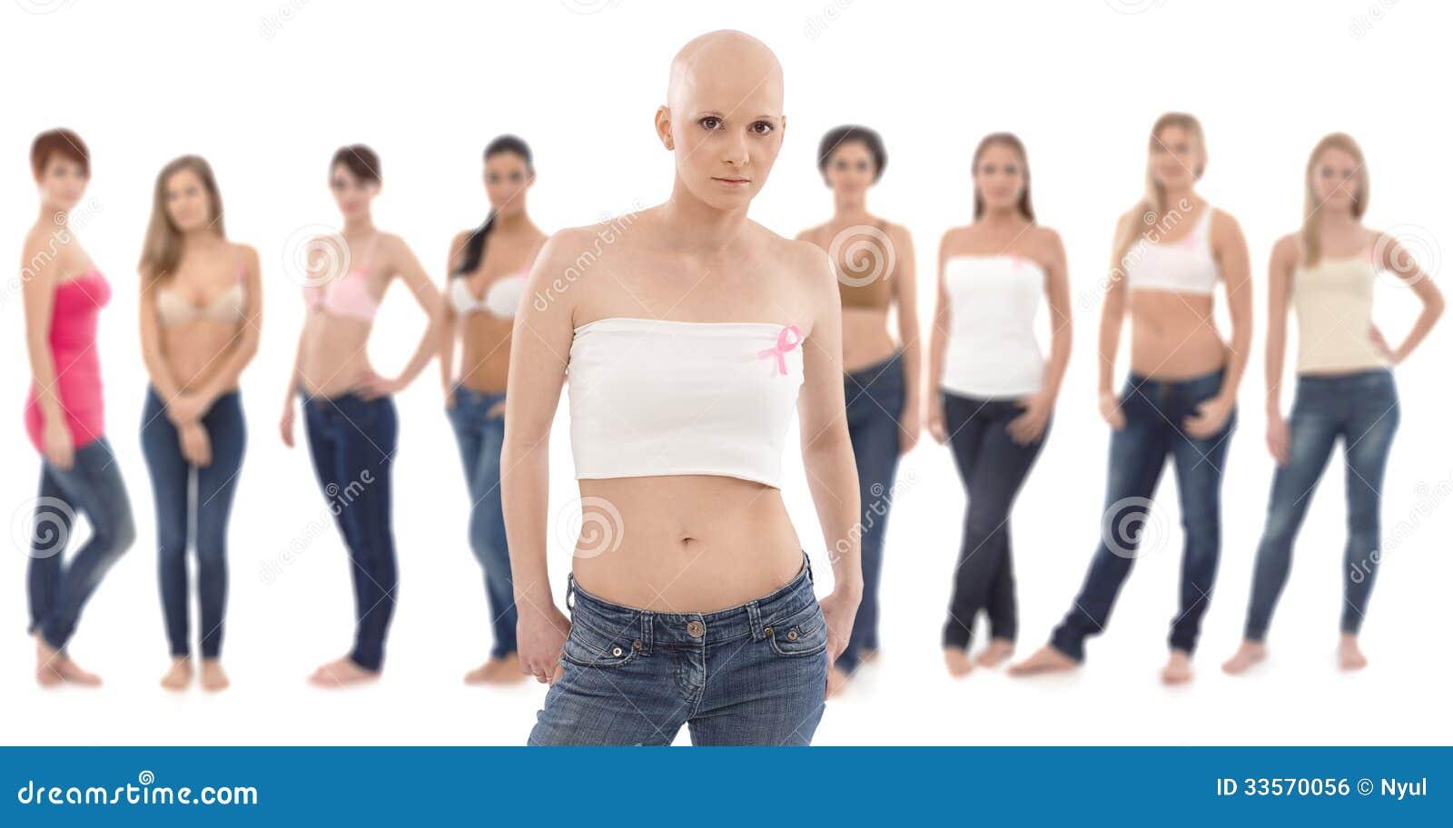 CANCER DU SEIN ET FEMME JEUNE - pesfrnetorg