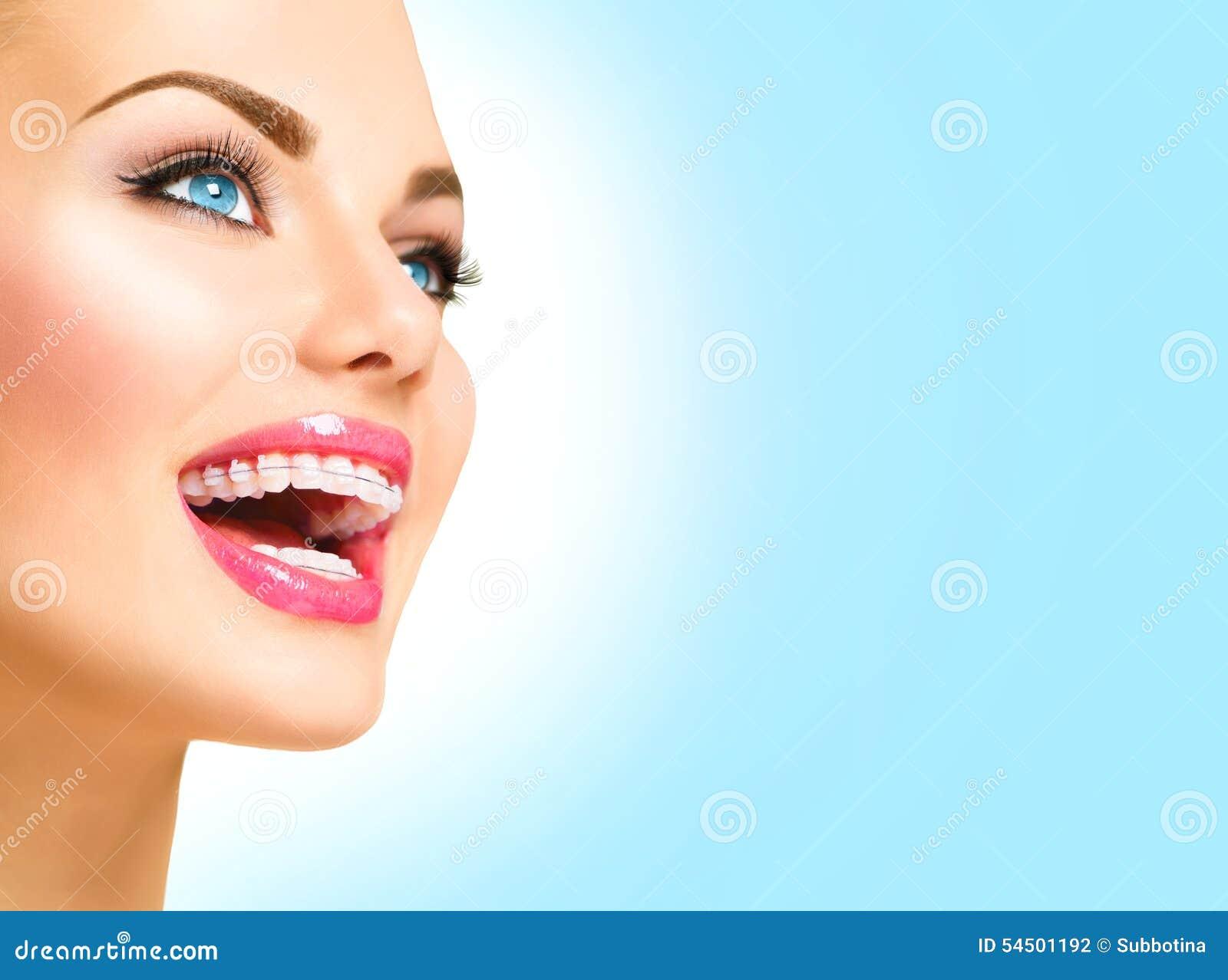 Femme souriant avec les accolades en céramique sur des dents