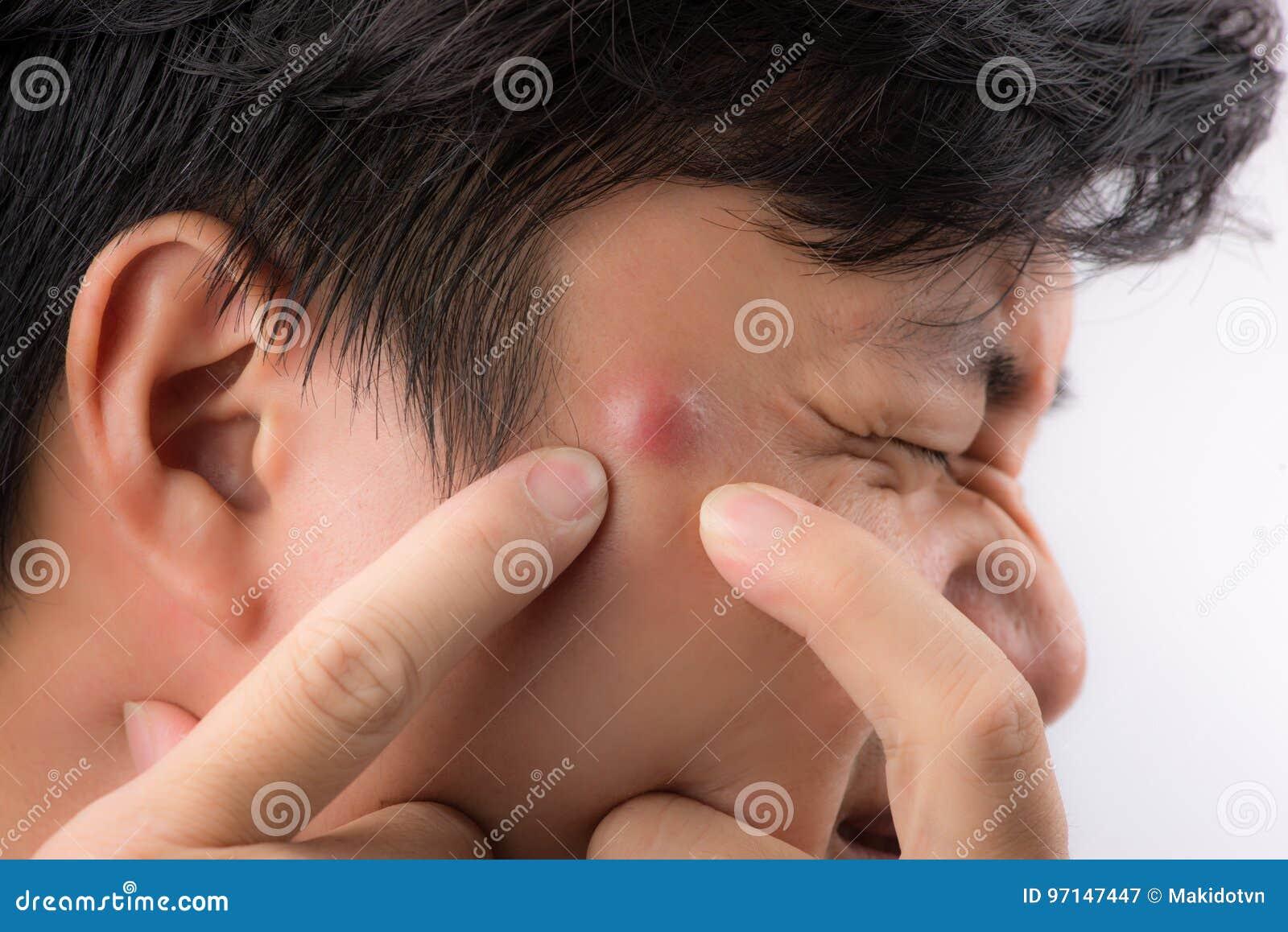 Fermez-vous vers le haut de la photo de la peau encline d acné, un homme serrant son bouton