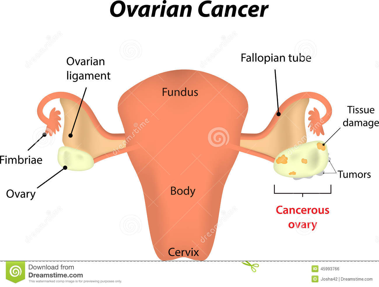 Fertilisation In The Uterus Stock Photo Image Of Fallopian