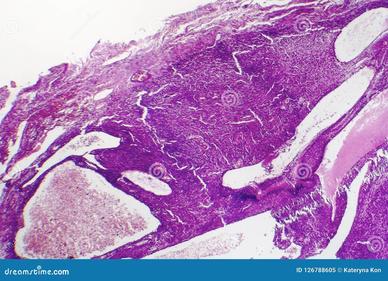 Fibrosarcoma elakartad tumör av fibroblasts