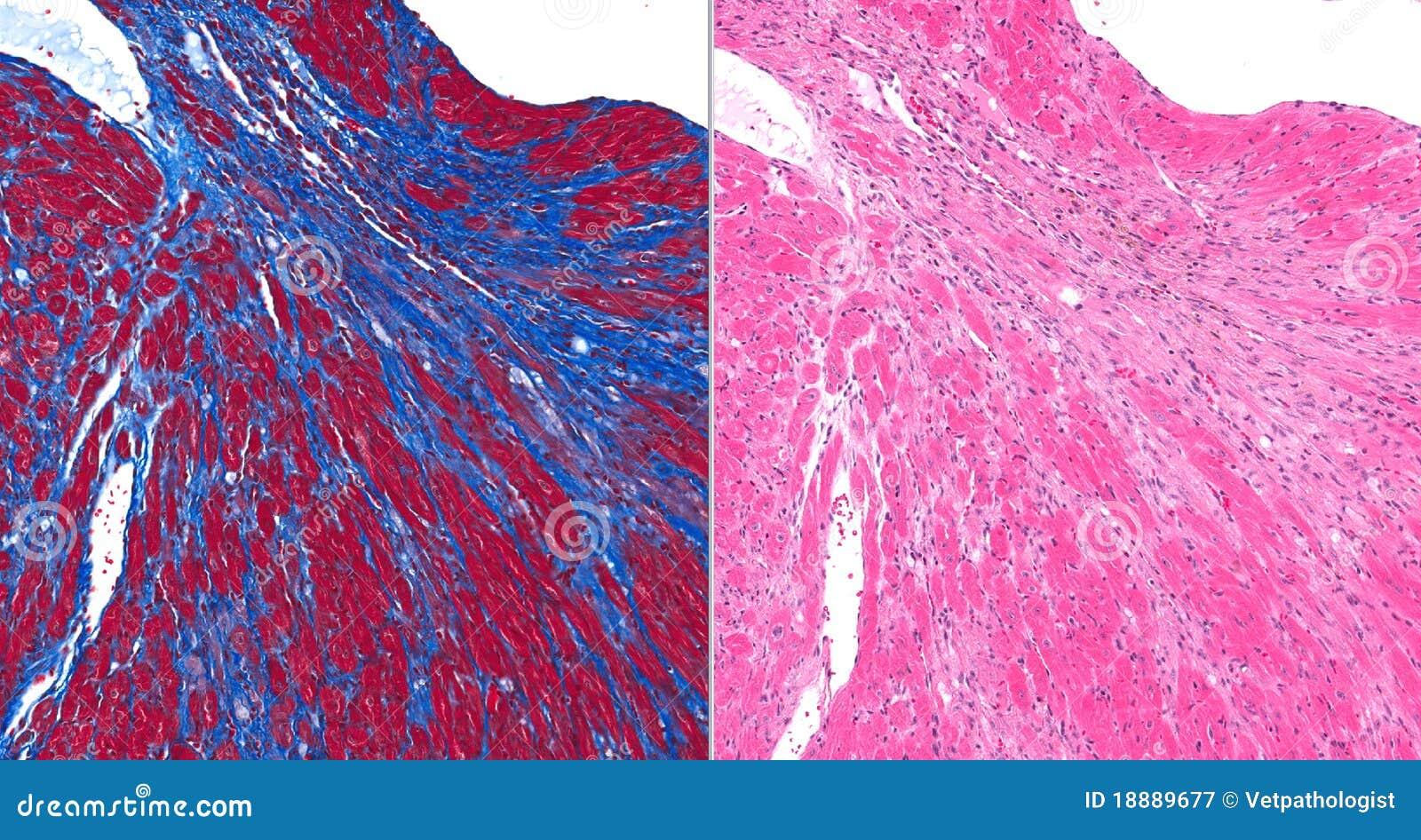 Fibrose Myocardique