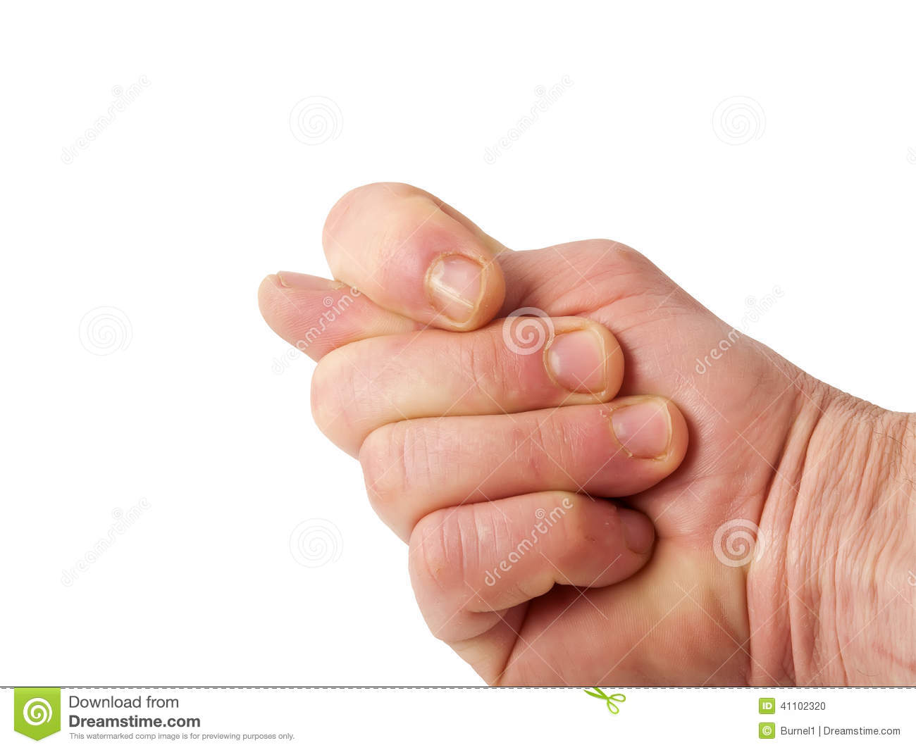 Fig hand