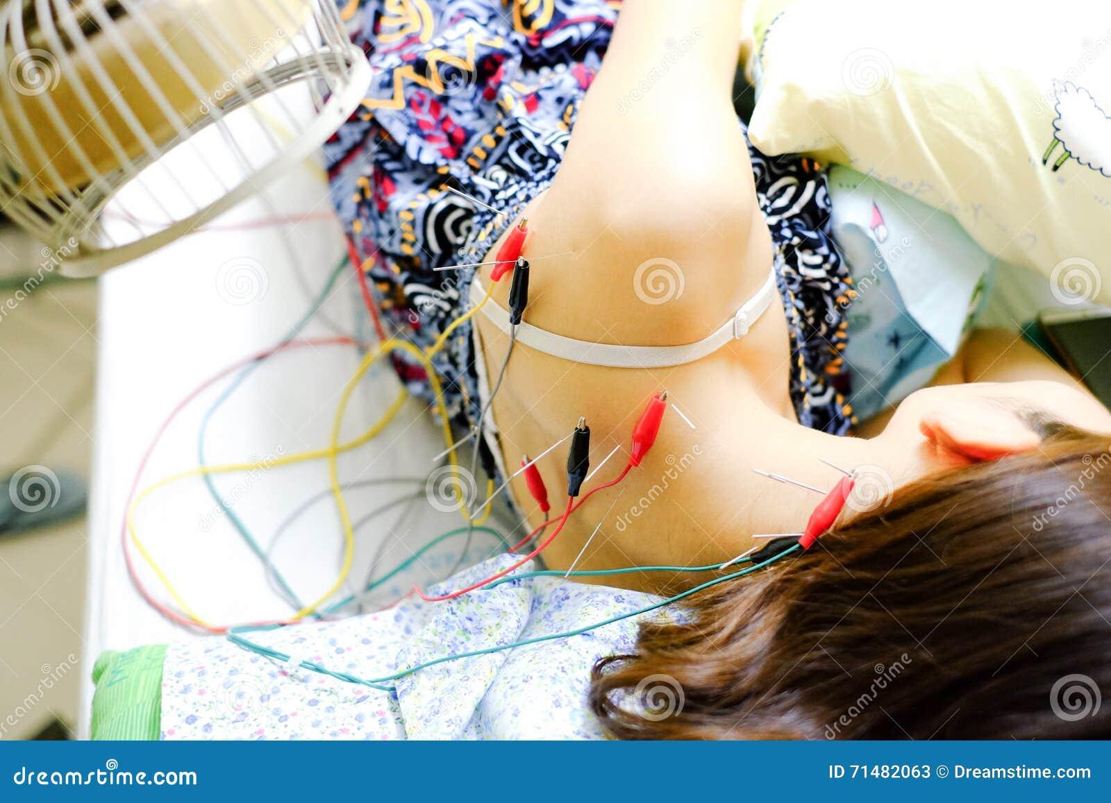 Fille asiatique obtenant un traitement d acuponcture