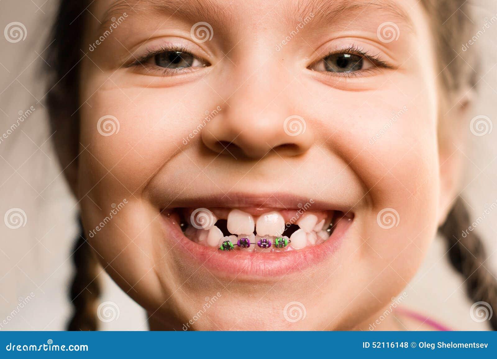 Fille Avec Des Bagues Dentaires Photo Stock Image 52116148