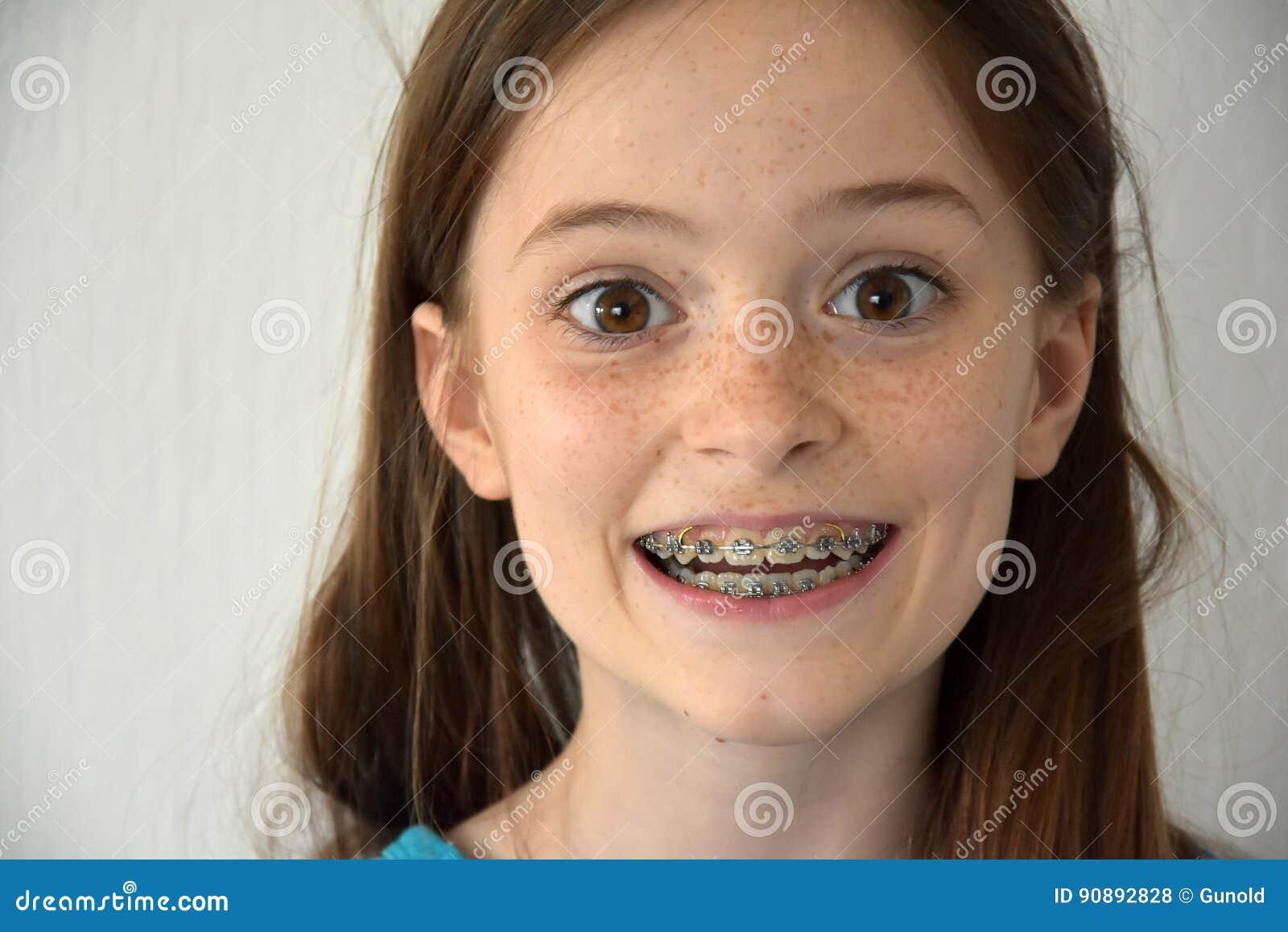 Fille avec des bagues dentaires