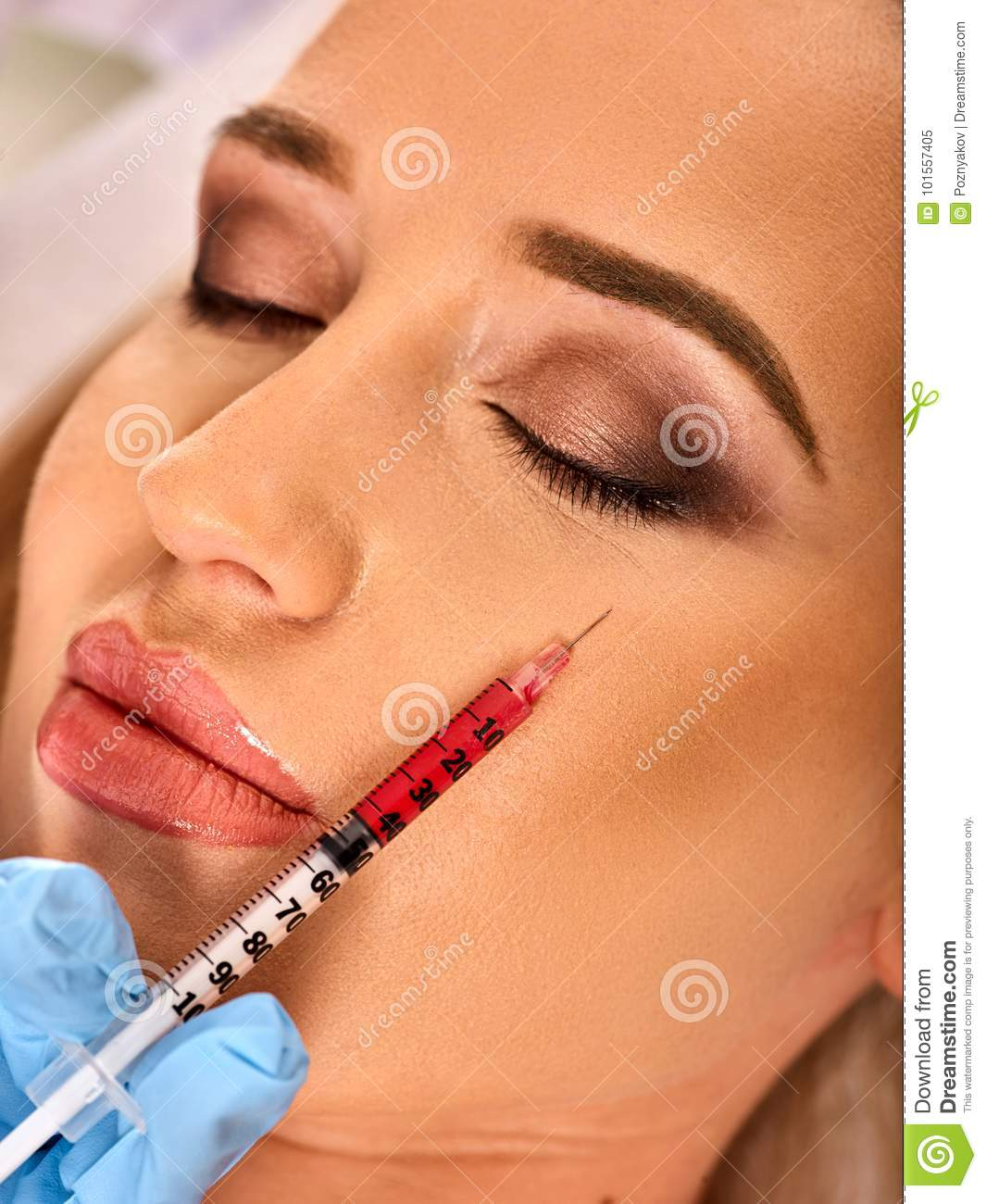 Dermal Fillers Of Woman In Spa Salon With Beautician  Stock