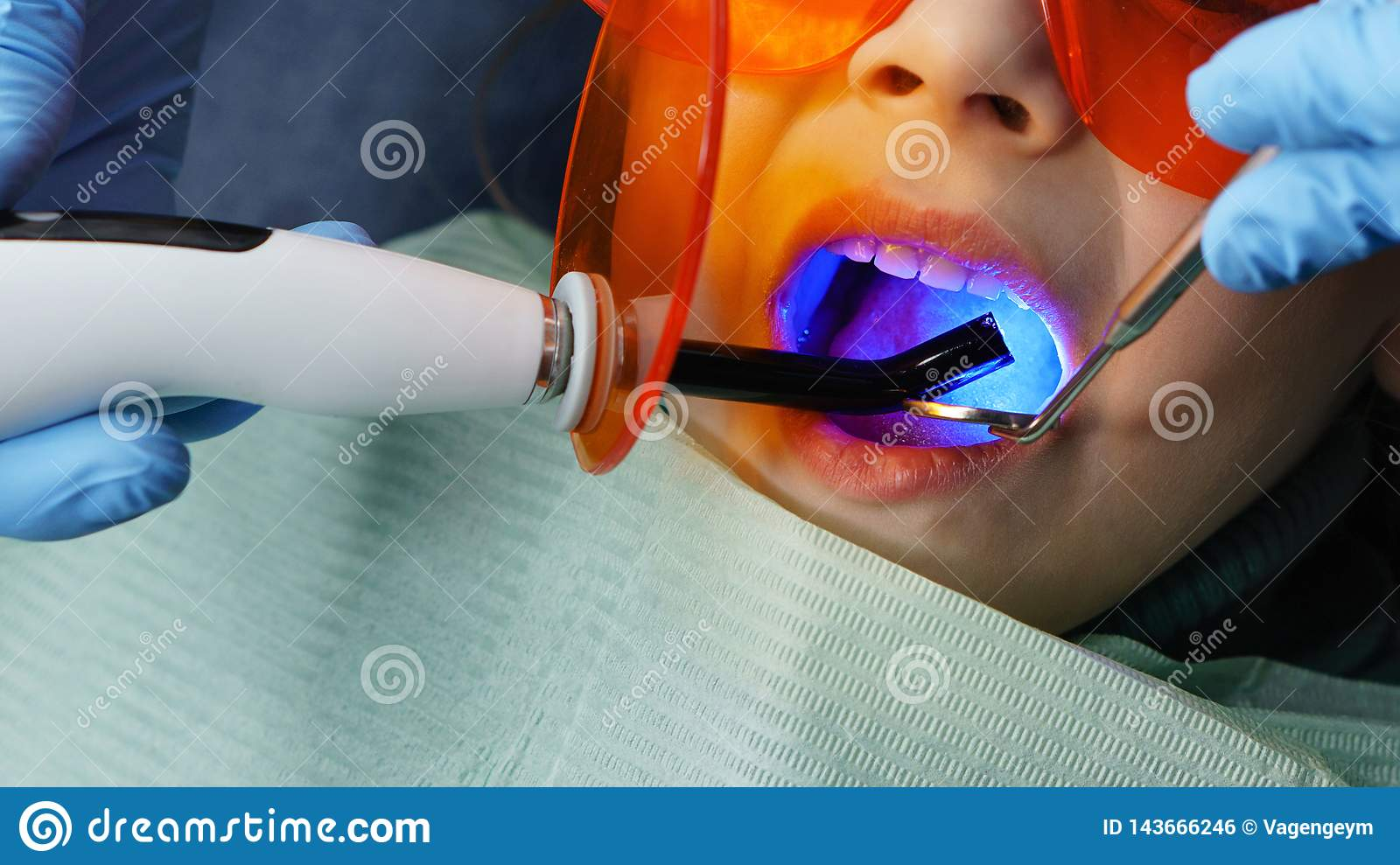 Filling of milk teeth. Dental clinic