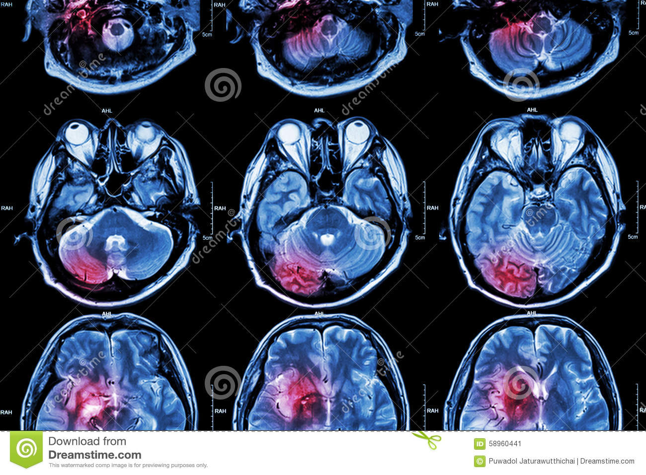 Film MRI ( Magnetic resonance imaging ) of brain ( stroke , brain tumor , cerebral infarction , intracerebral hemorrhage ) ( Medi