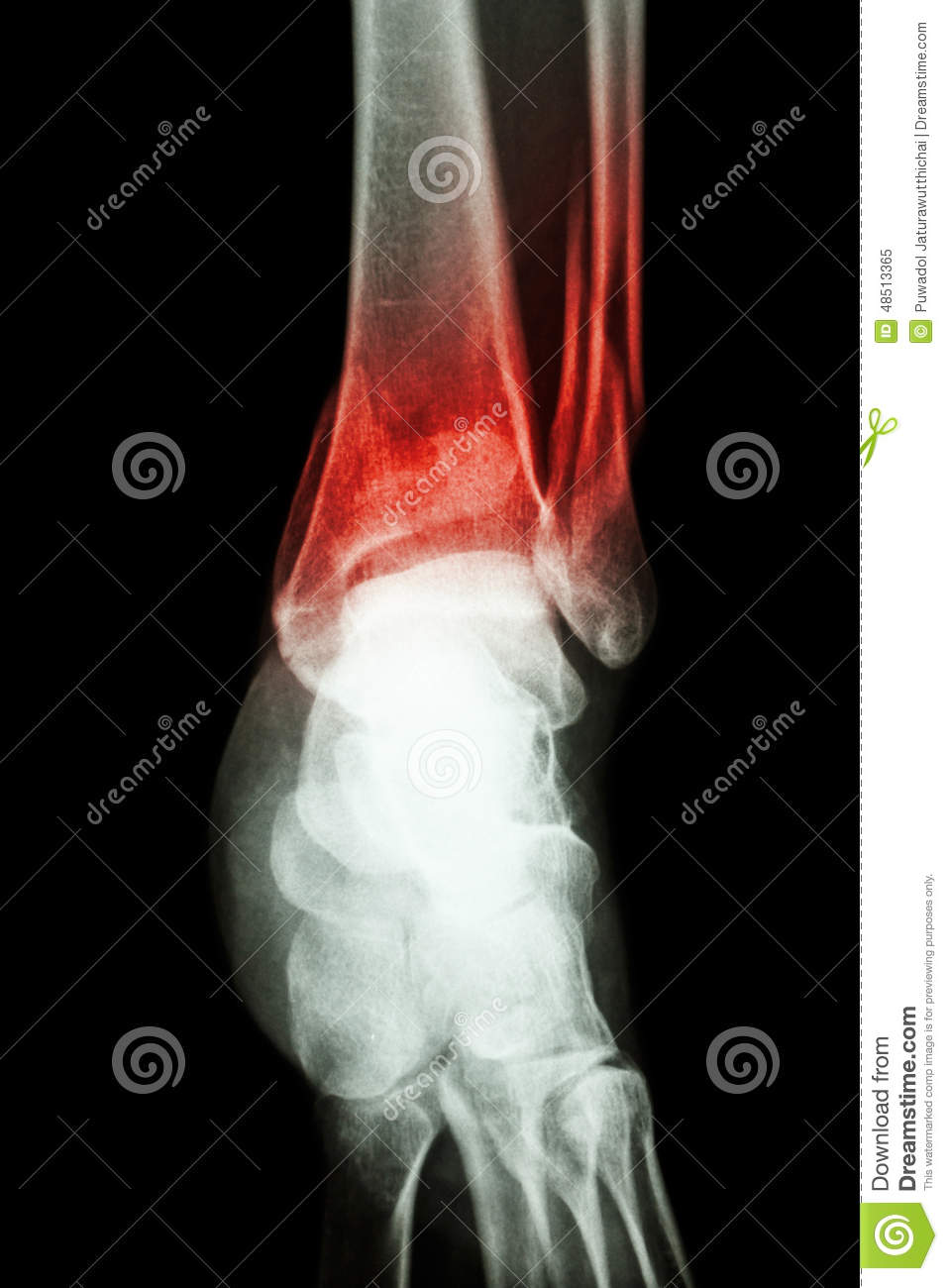 Film X-ray Ankle Show Fracture Distal Tibia And Fibula (leg\'s Bone ...