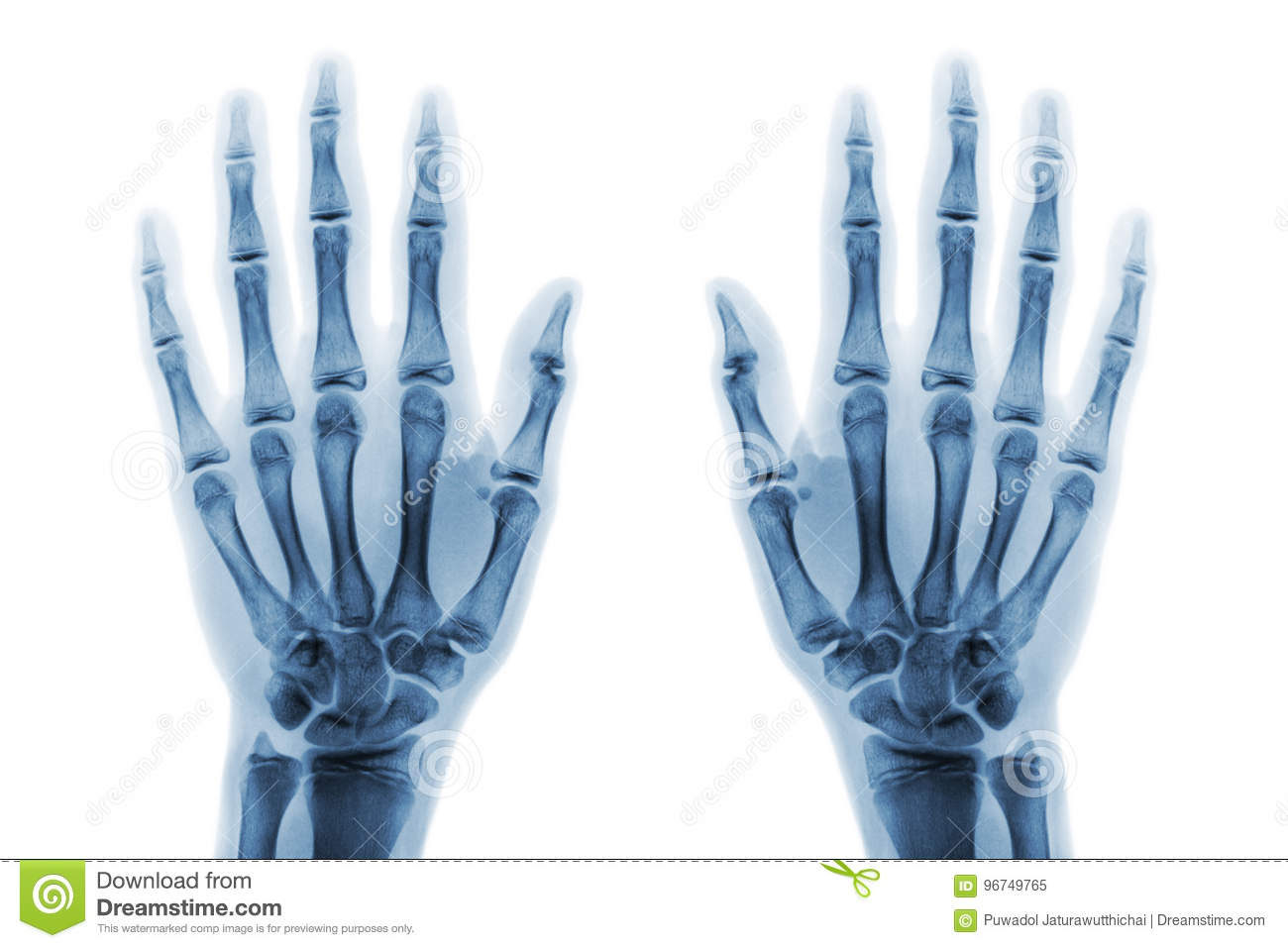 Film X-ray Both Hand AP Show Normal Human Hands On White Background ...