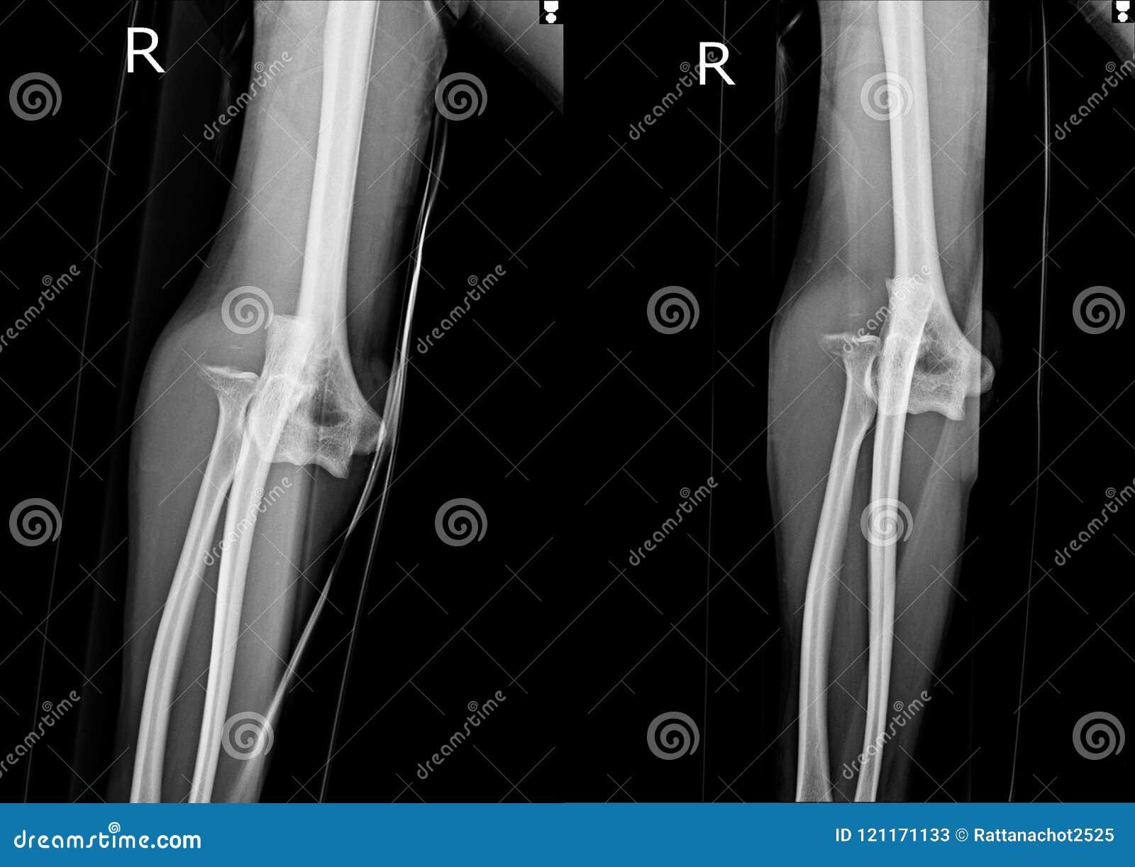 Film x-ray elbow AP-Lat stock image. Image of orthopedic - 121171133