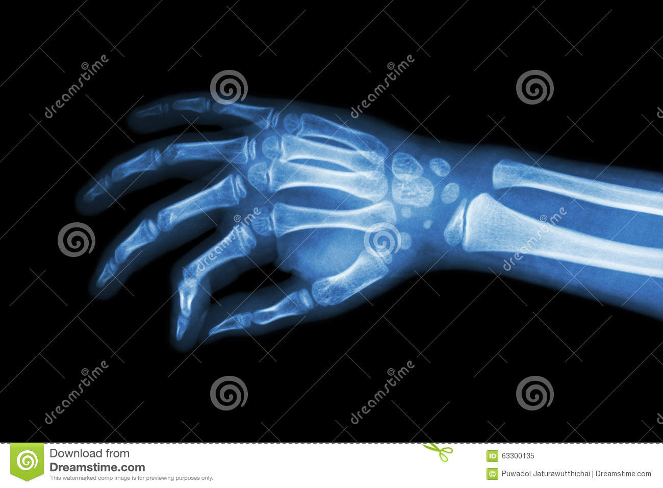 Film x-ray hand of child ( oblique view )