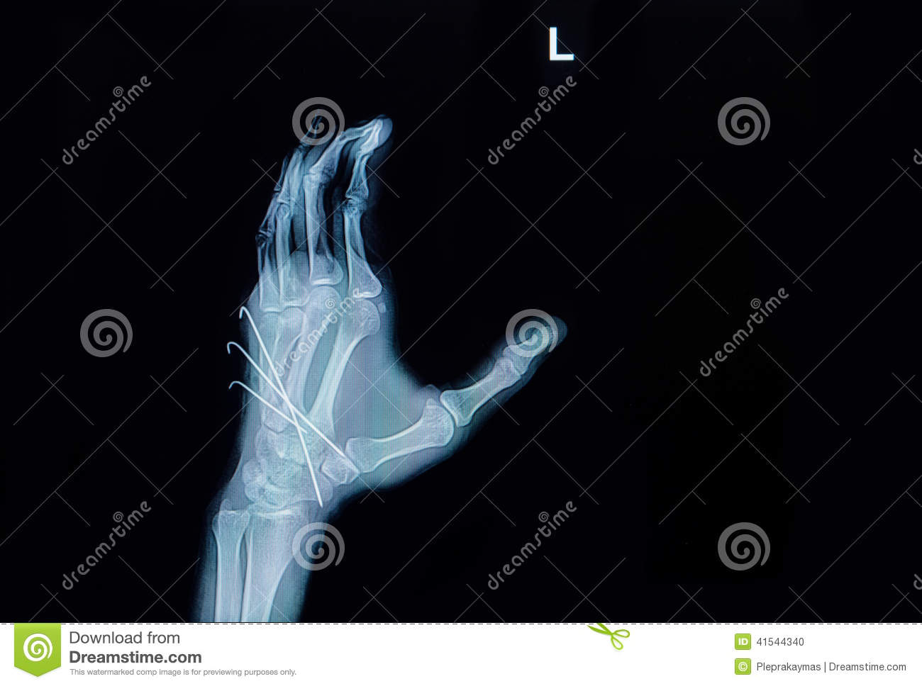 Film X-ray Of Hand Fracture : Show Fracture Metacarpal Bone Inse ...