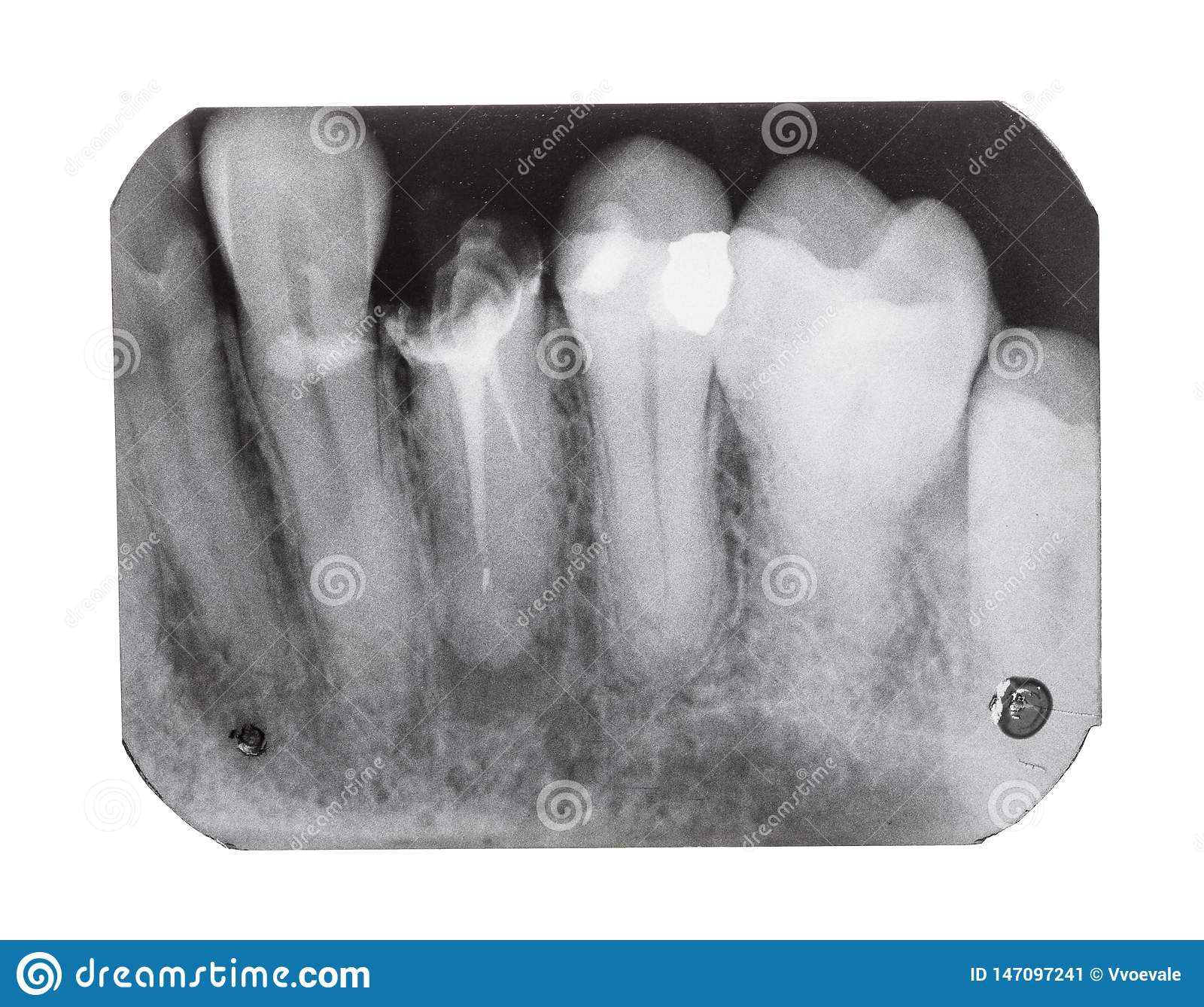 Film With X-ray Image Of Teeth With Dental Pin Stock Image ...