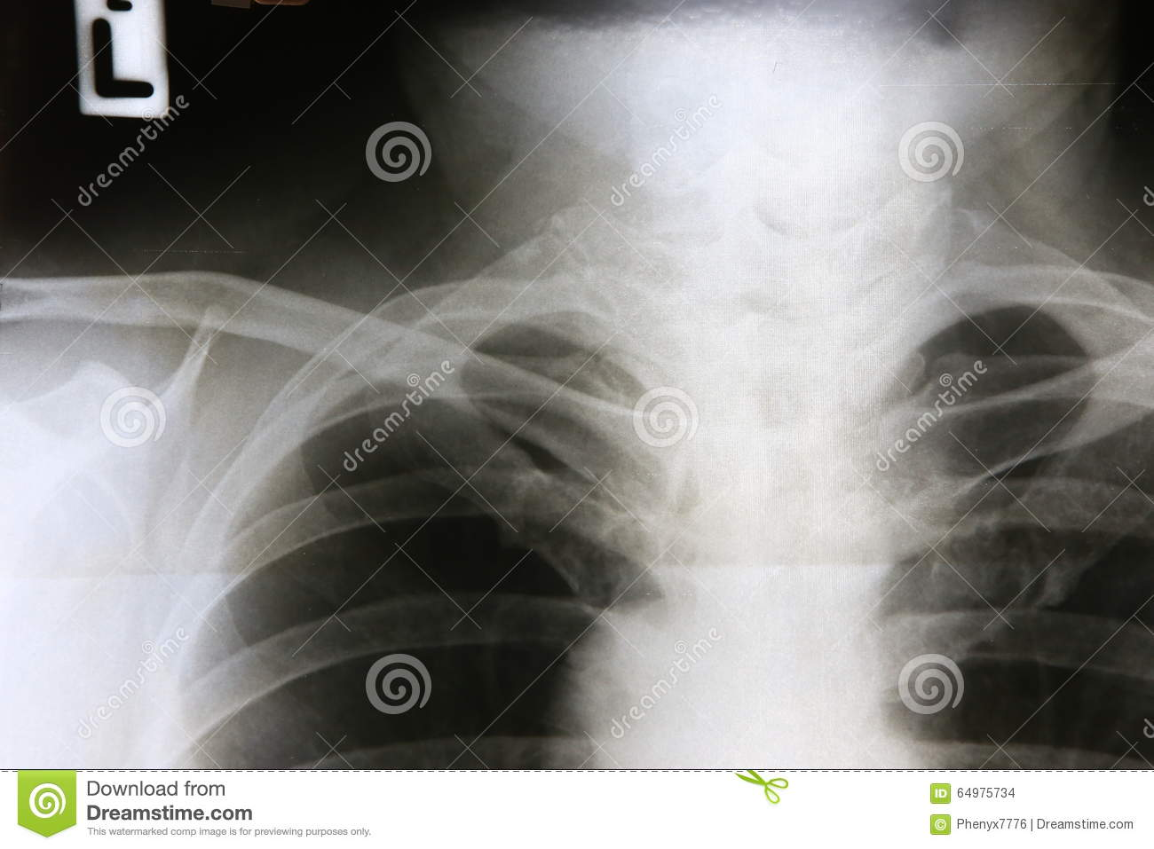 Film x-ray right clavicle stock photo. Image of anatomy - 64975734