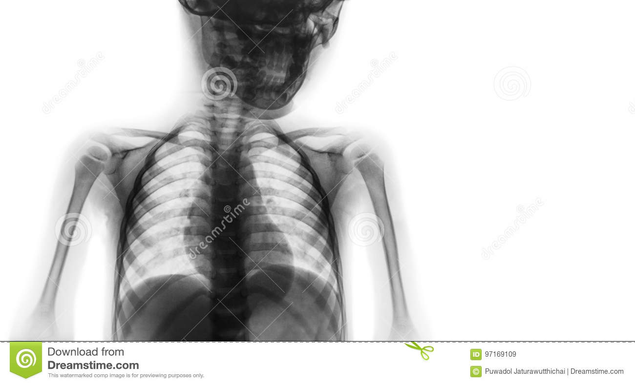 Film X-ray Upper Half Body Of Child And Blank Area At Right Side ...