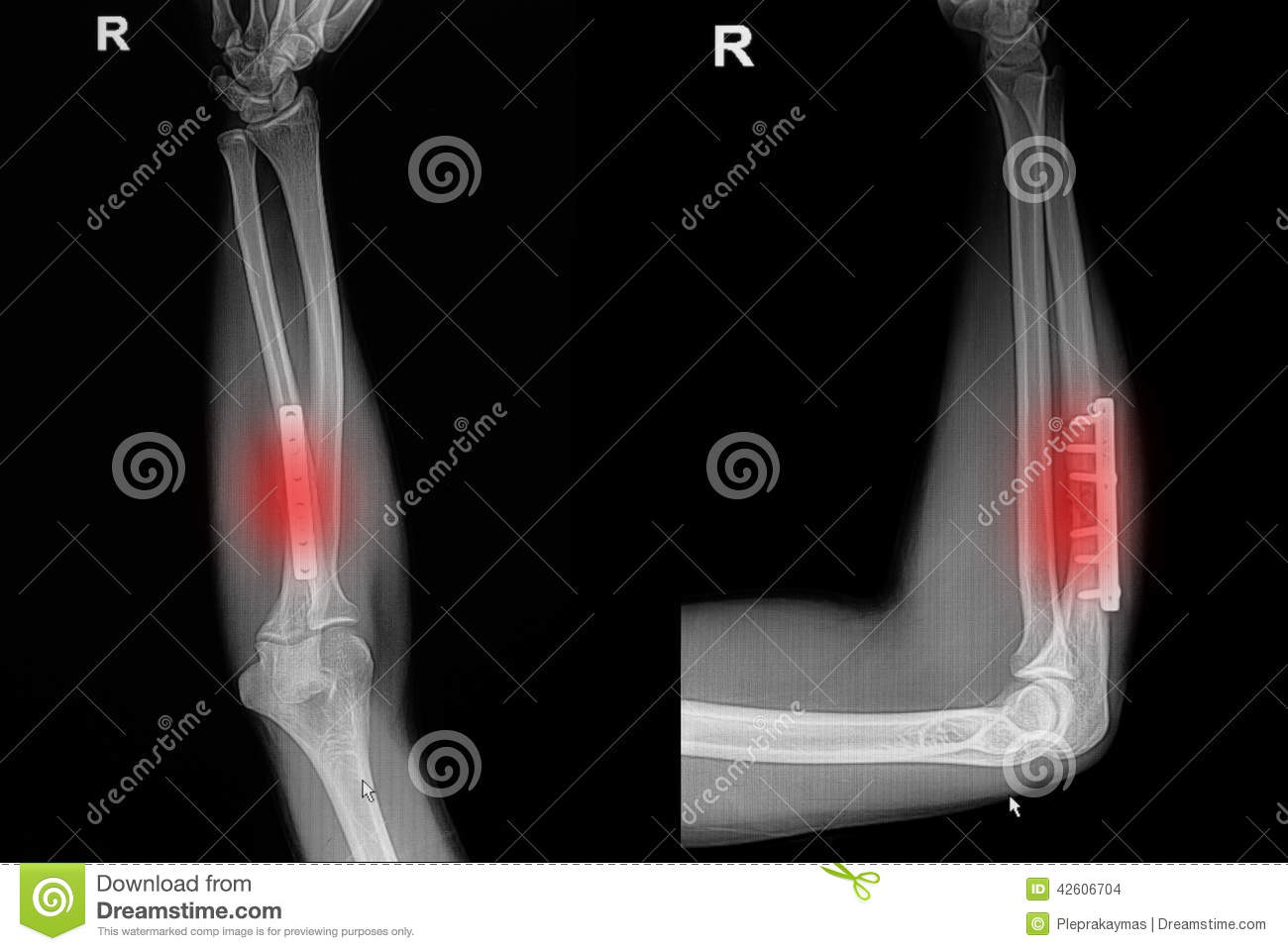 28 Collection of X Ray Clipart Black And White Hand
