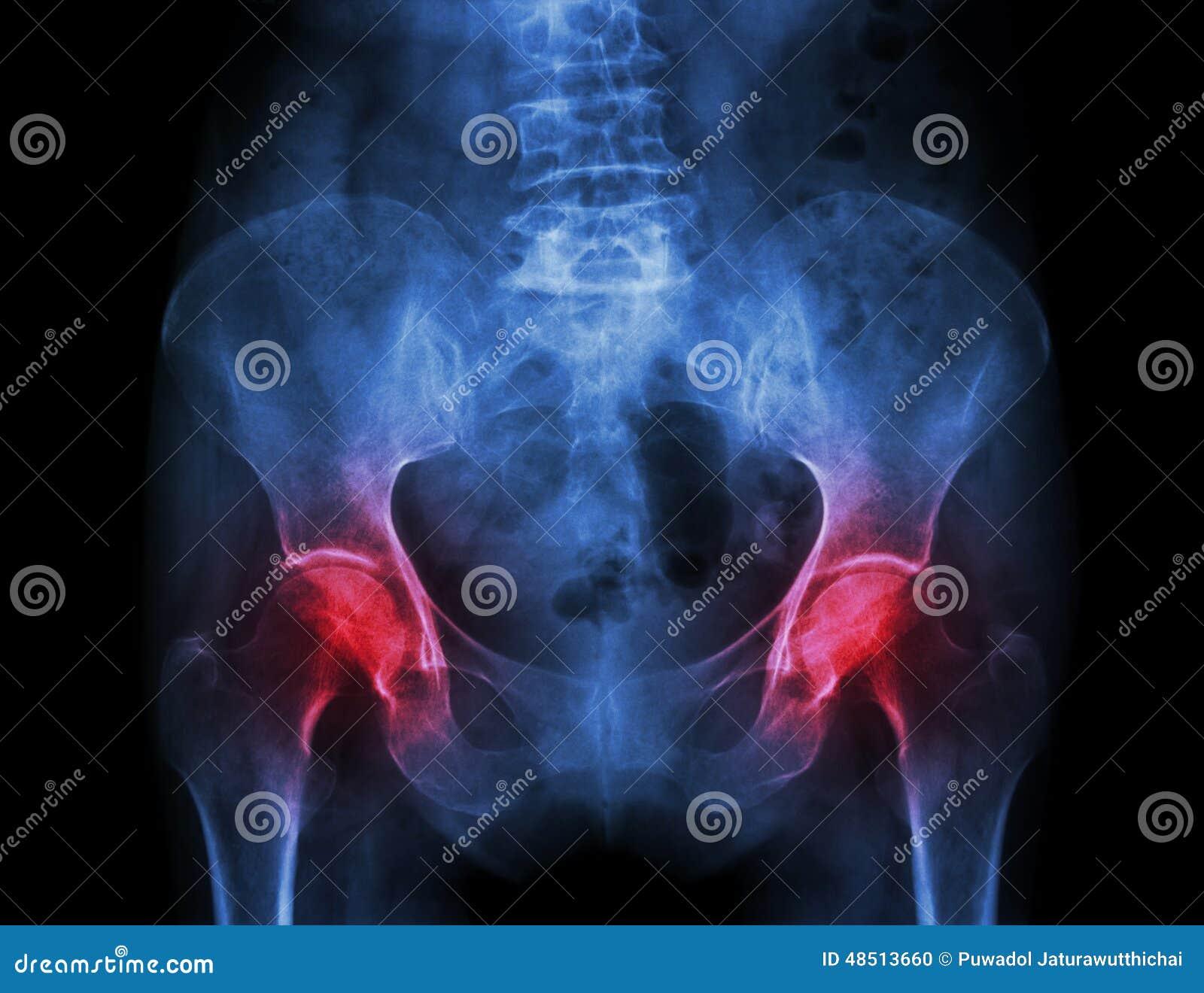 Filmez le bassin de rayon X du patient et de l arthrite d ostéoporose les deux hanche