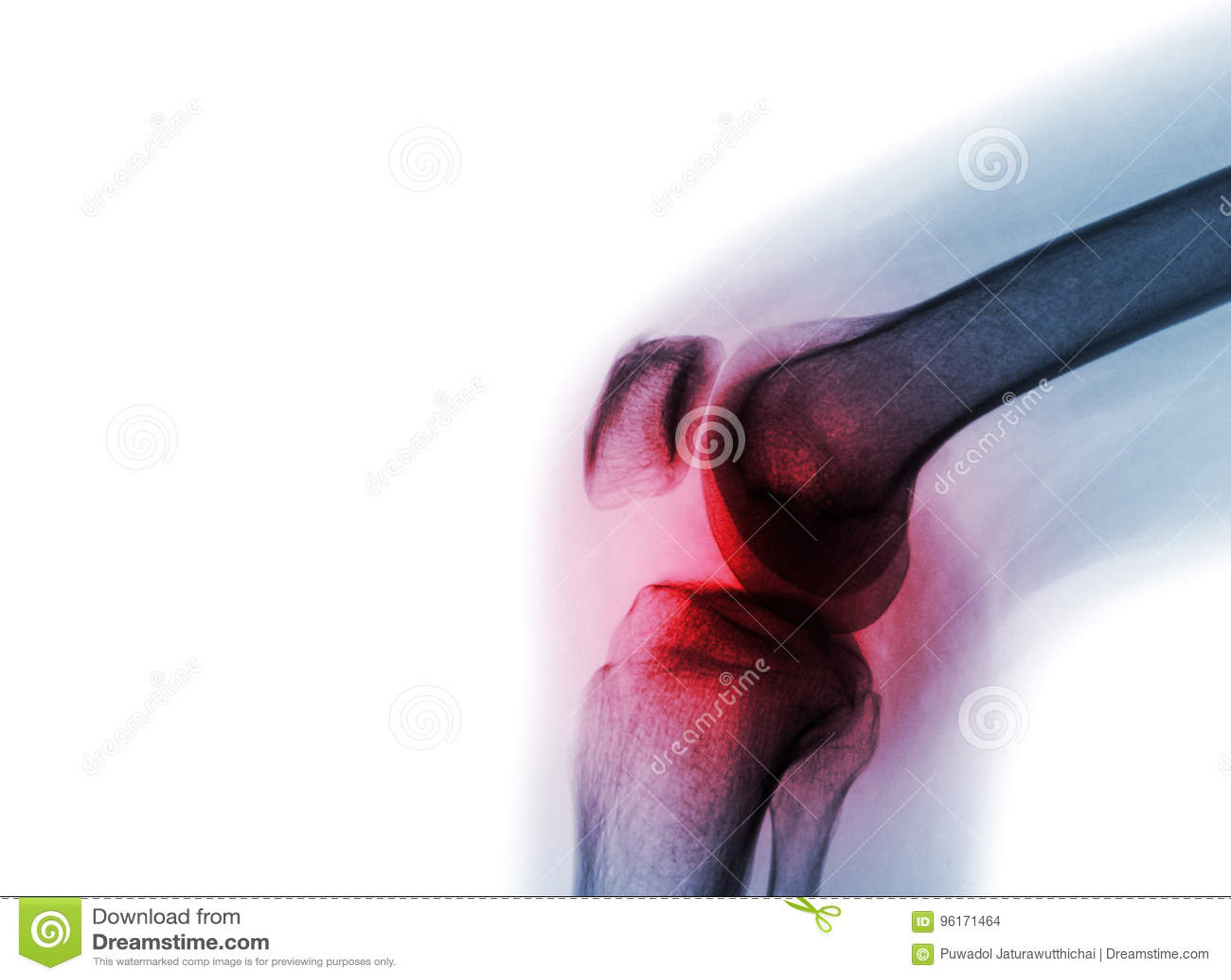 Filmi il giunto di ginocchio dei raggi x con l artrite & x28; Gotta, artrite reumatoide, artrite settica, ginocchio di osteoartri