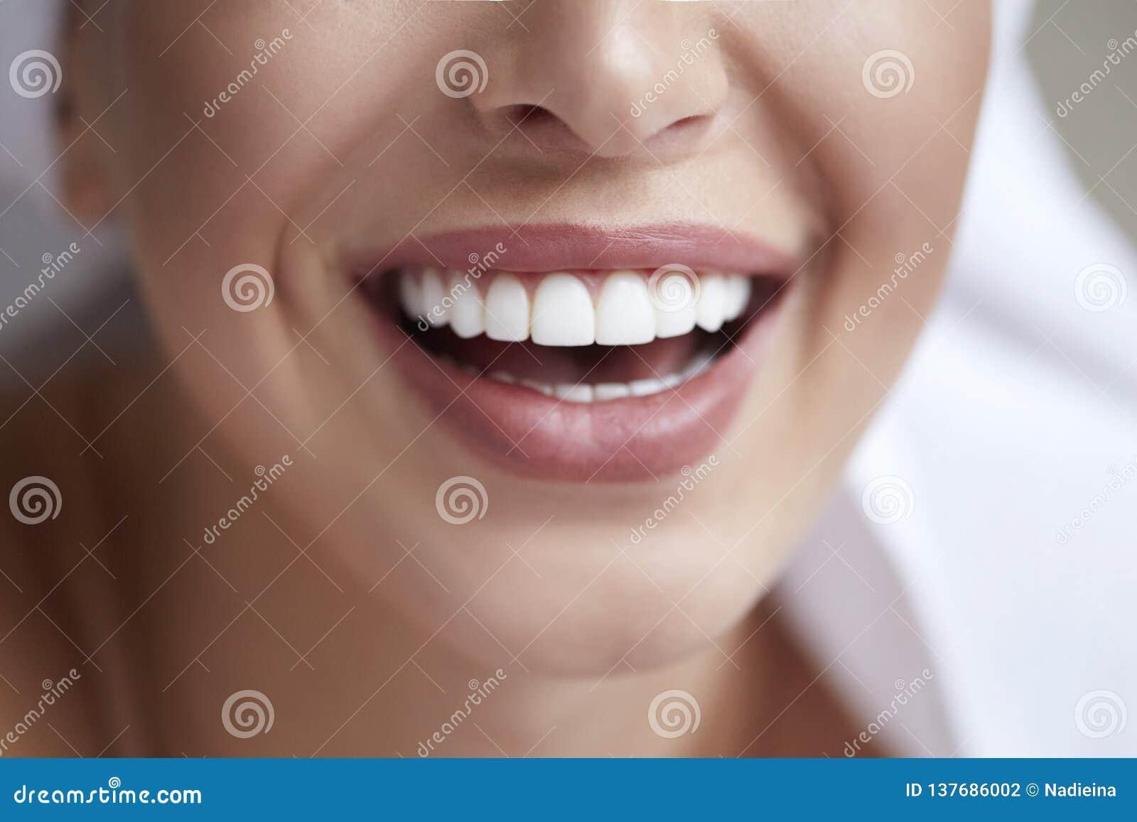 Fim branco saudável do sorriso acima Mulher da beleza com sorriso perfeito, bordos e dentes Menina bonita com pele perfeita Dente