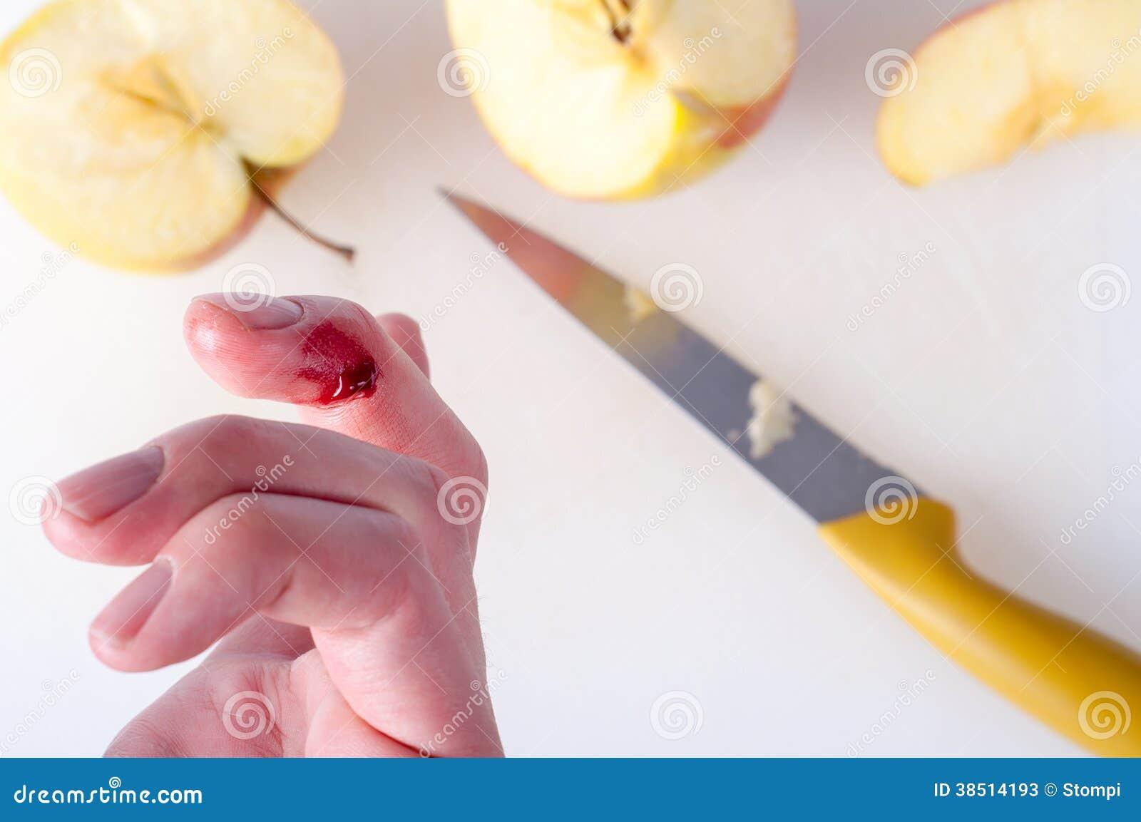 Finger Cut Stock Photos