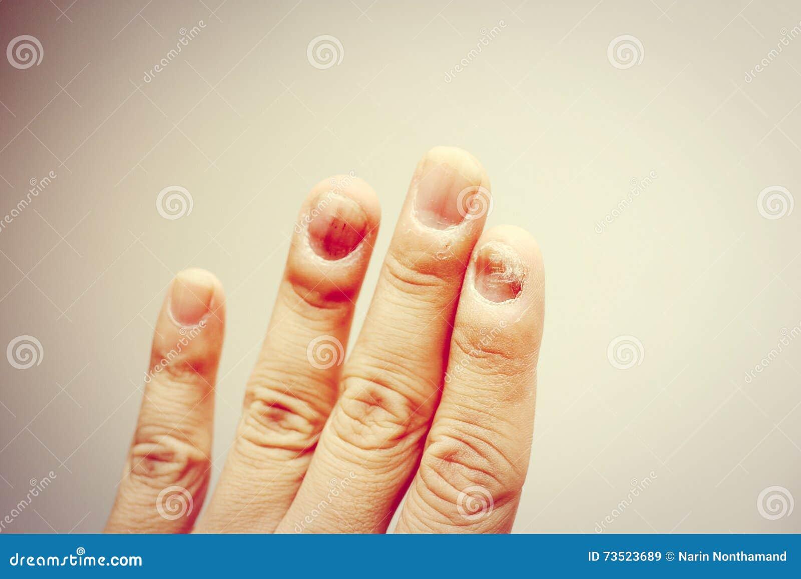 Finger Mit Onychomycosis Ein Zehennagelpilz