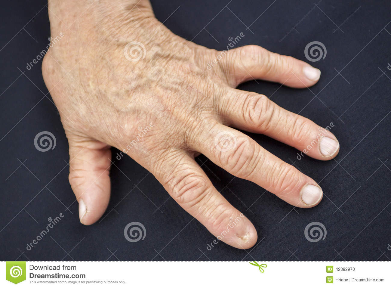 Finger without nail stock photo. Image of abnormal, adult - 42382970