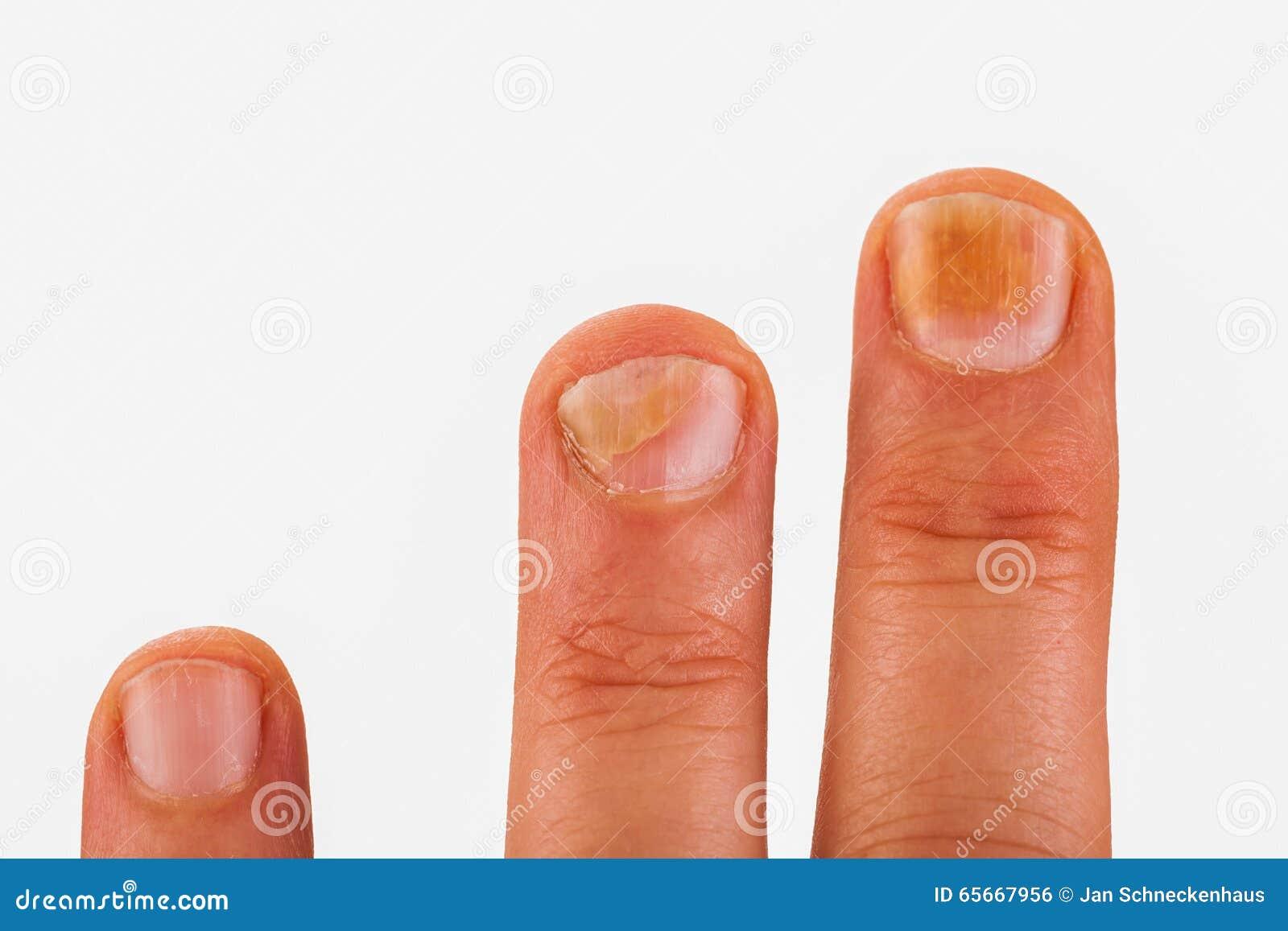 Fingernagel Mit Nagelpilz Stockfoto Bild Von Krankheit 65667956