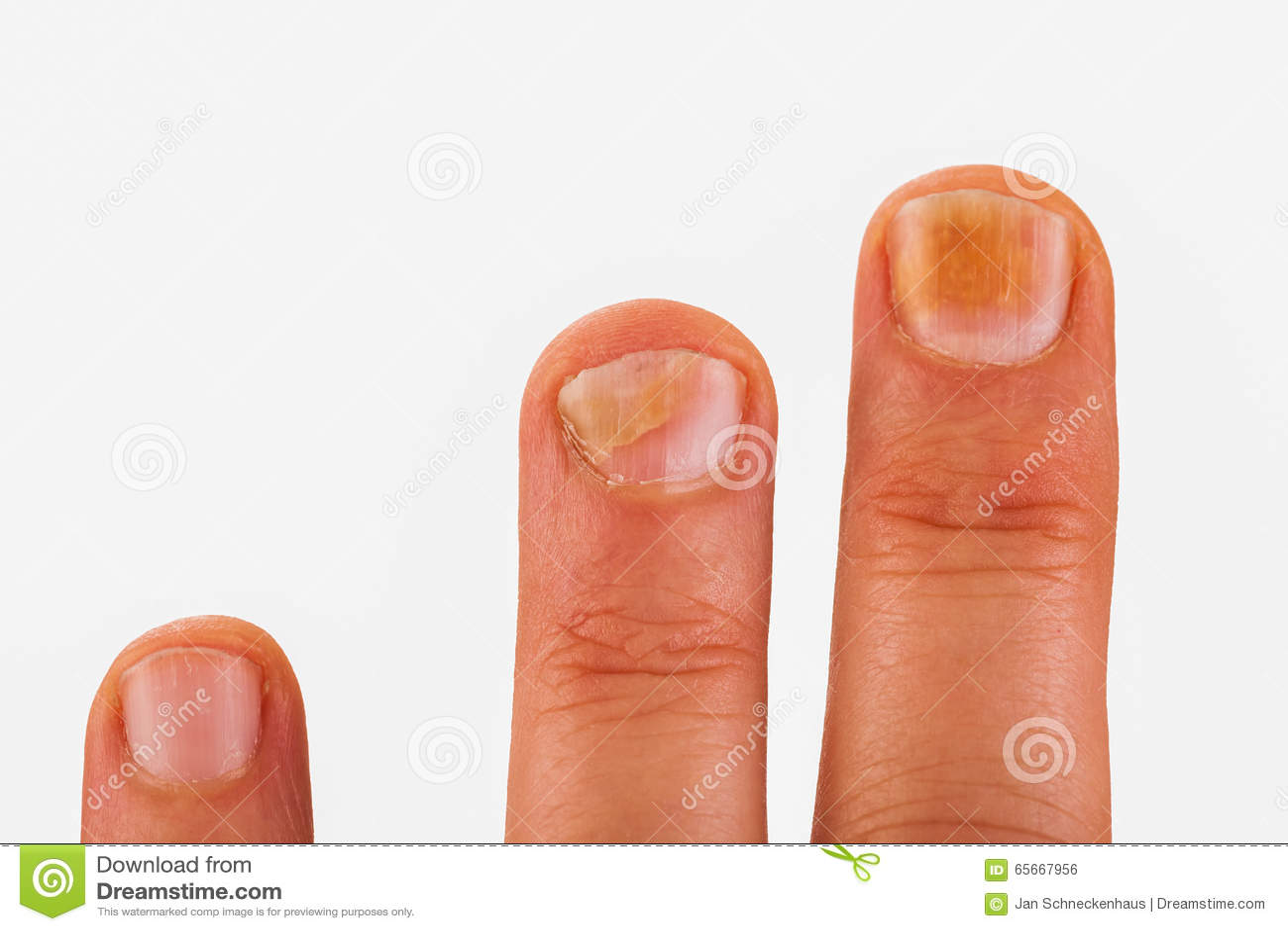 Fingernaglar med spikar svampen