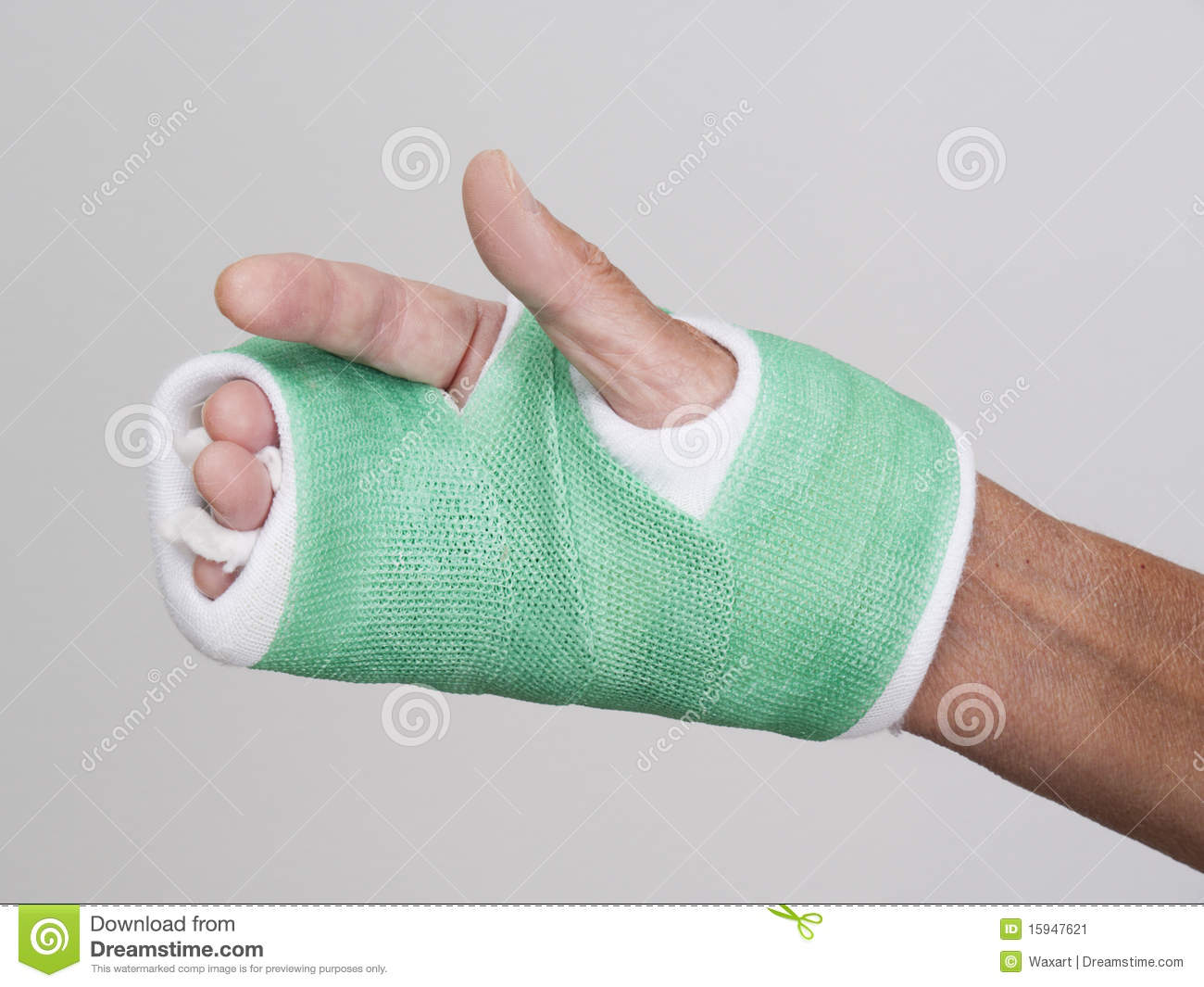fingers of right hand in green cast stock image image of cast