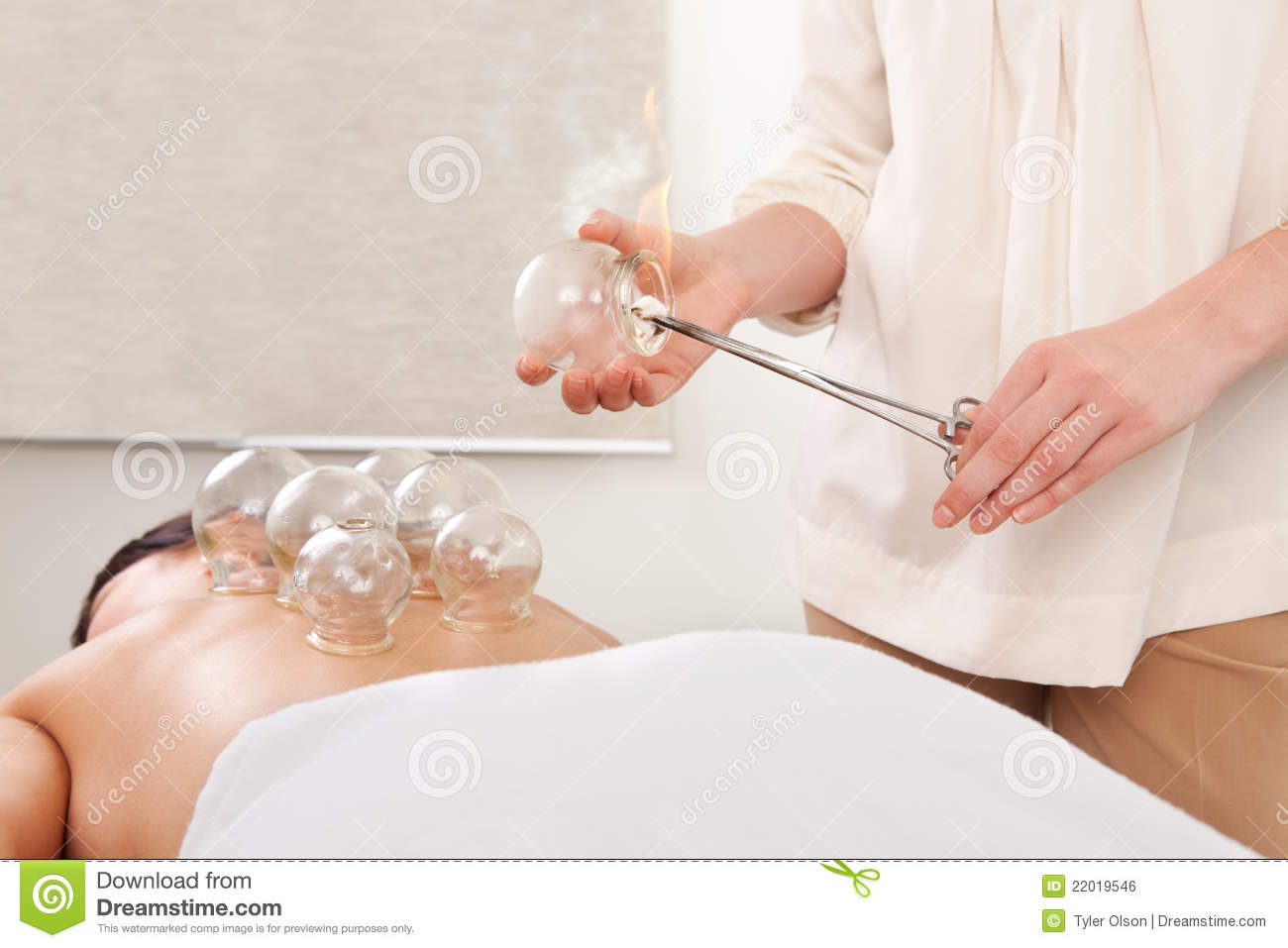 Fire Cupping Detail Stock Photo Image Of Back Medical