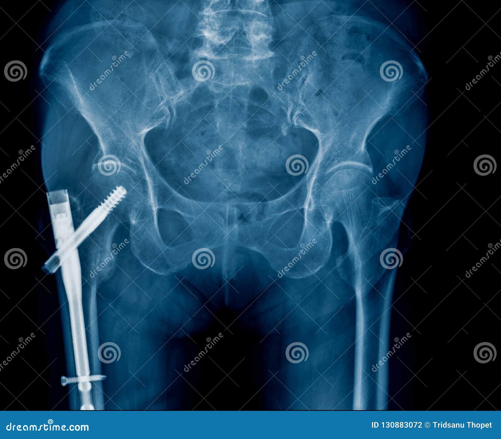 Fixação anca para o paciente idoso com fratura anca