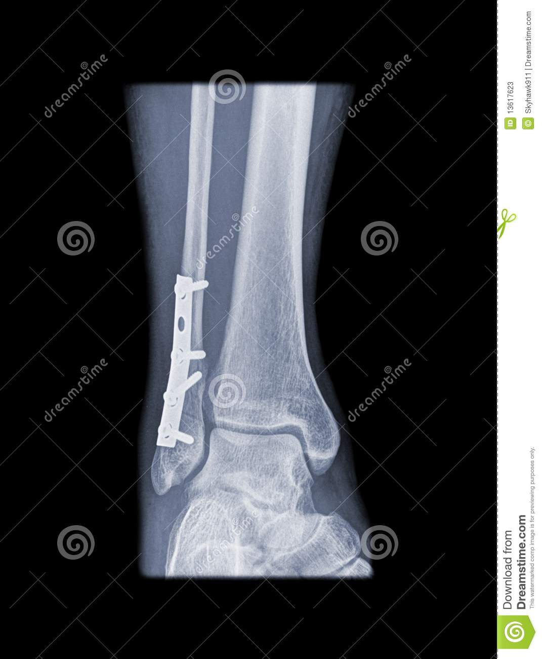 Fixed weber b fracture stock image. Image of pain, injury ...