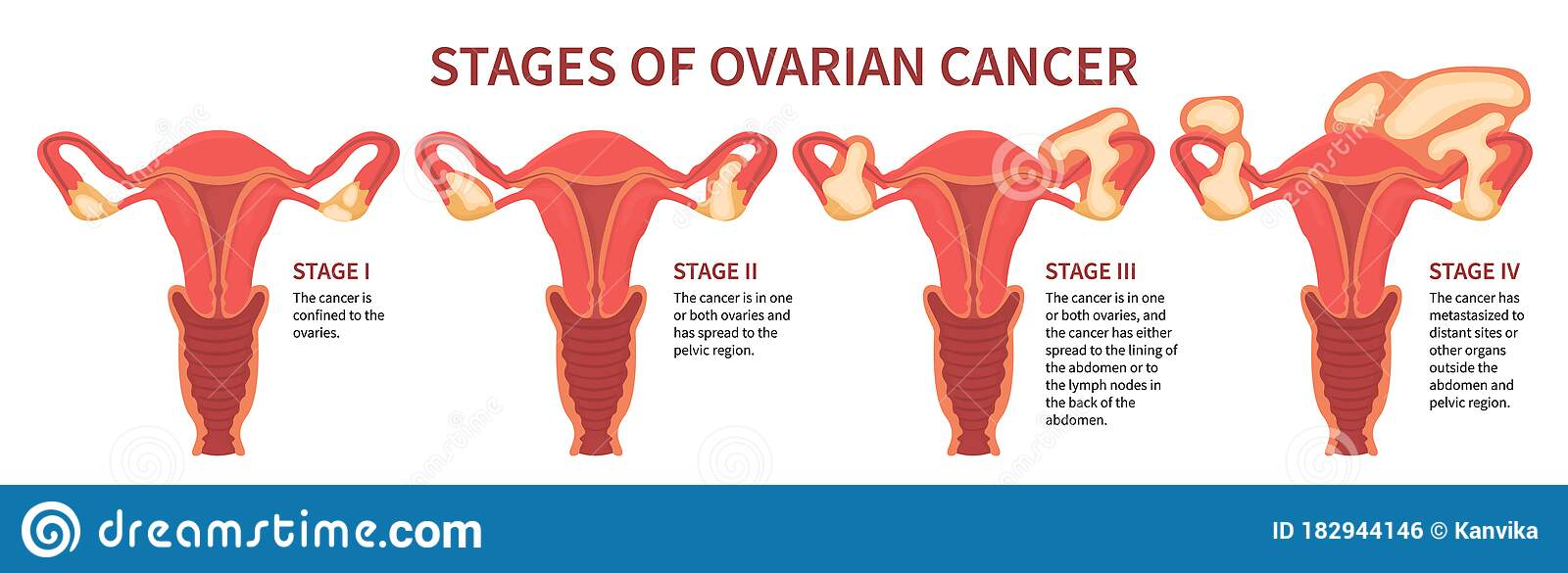 Four Stages Of Ovarian Cancer Isolated White Stock Vector Illustration Of Ovary Education 182944146