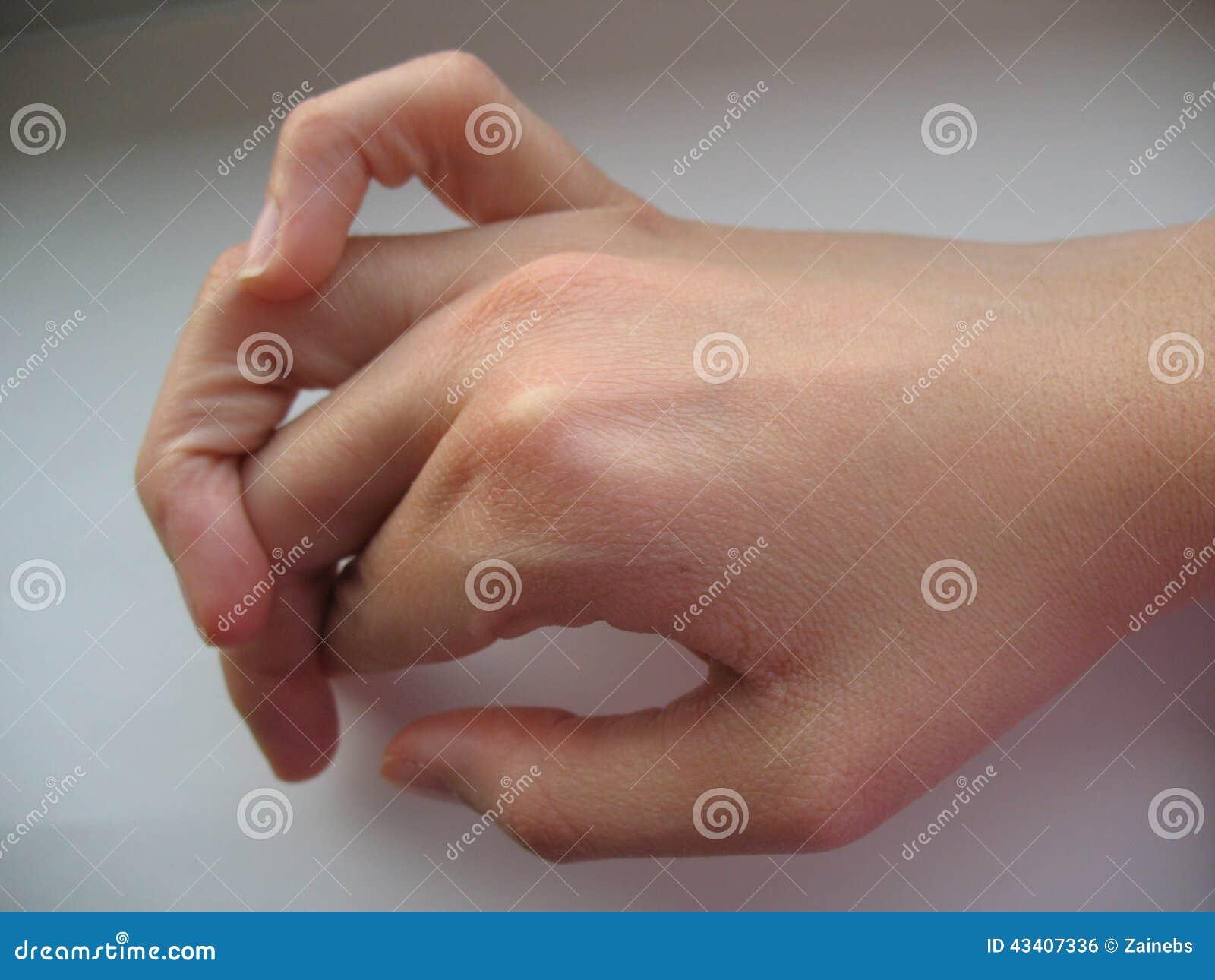Thumb basal joint rereditary misalignment