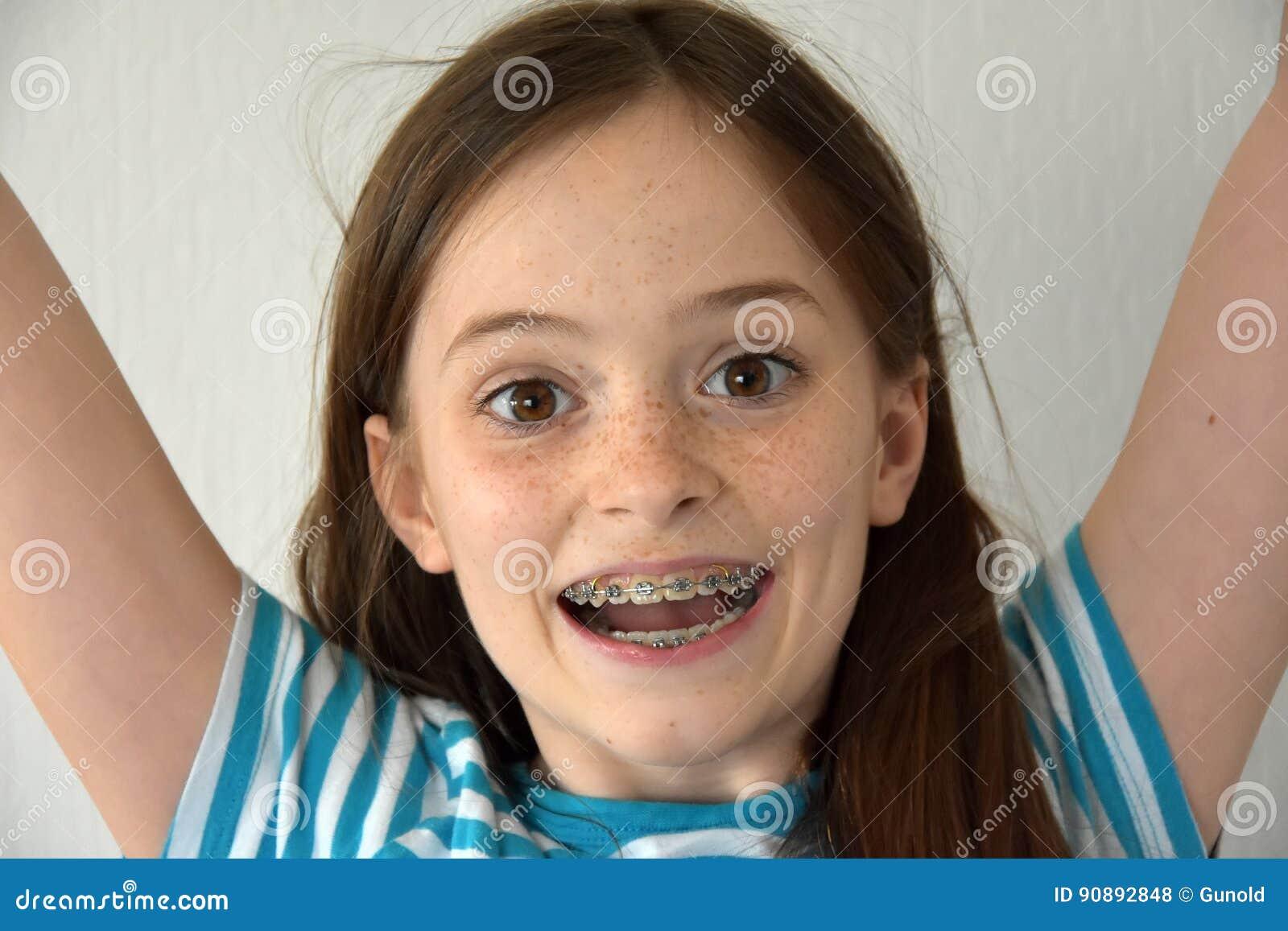 Flicka med tand- hänglsen