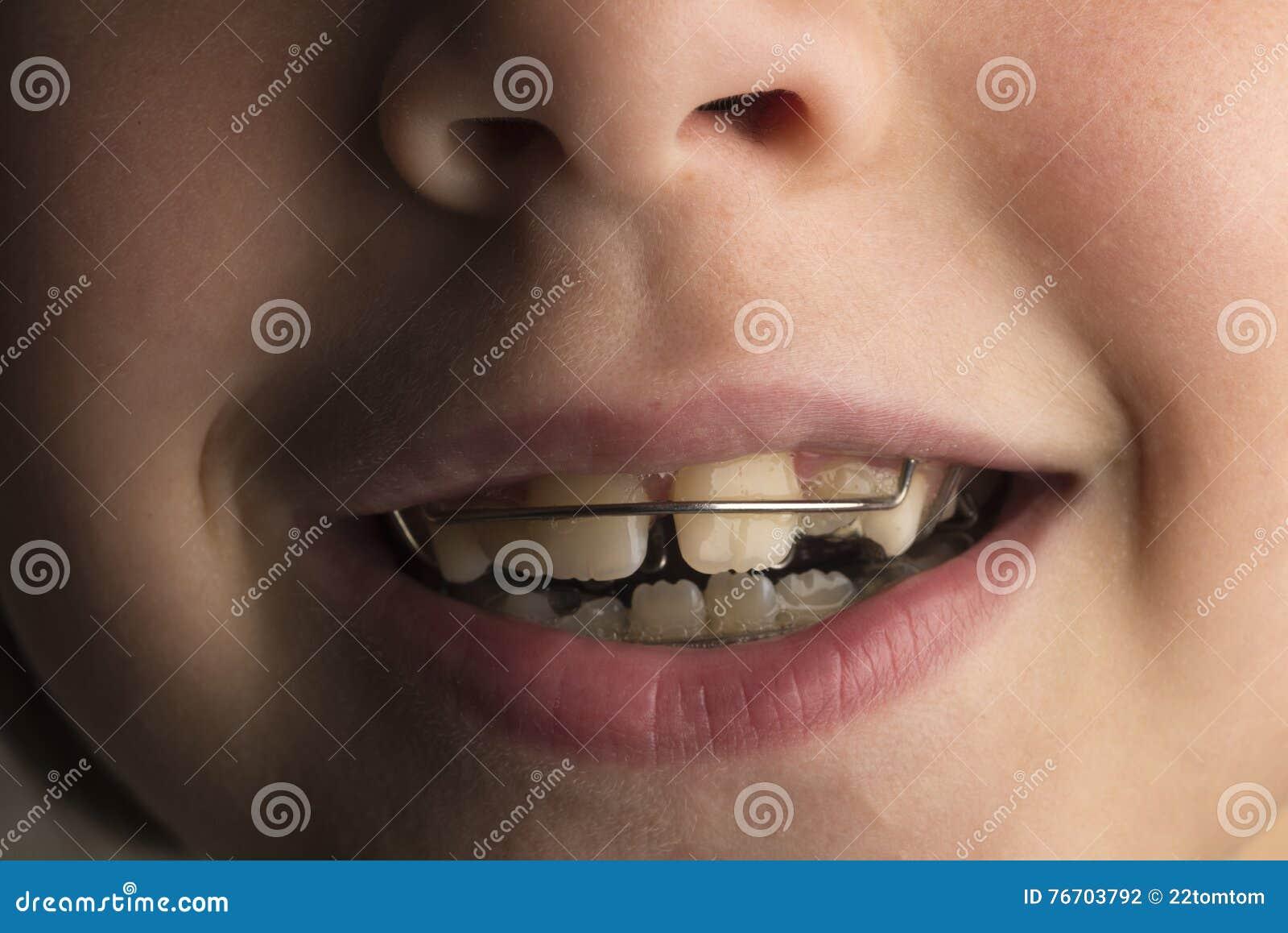 Flicka som bär en orthodontic tand- apparatur