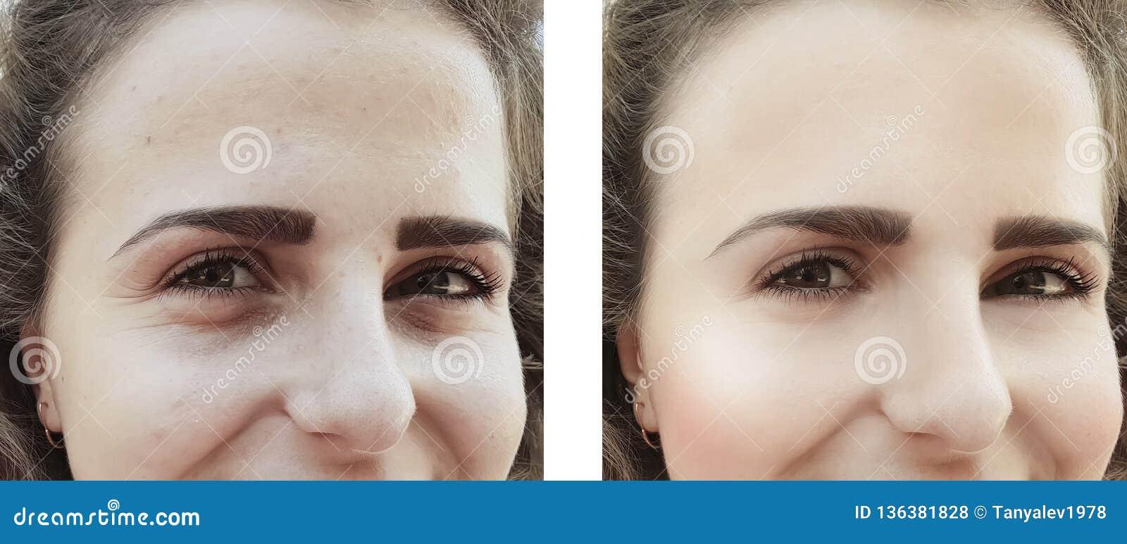 Flickan rynkar ögon för efter tillvägagångssättpåsekorrigering