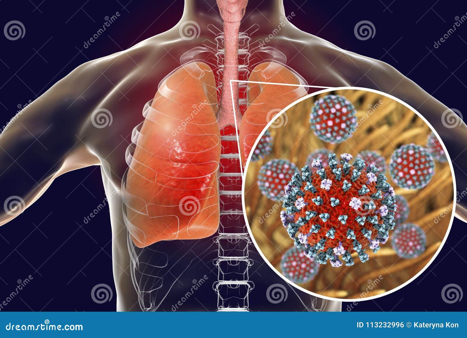 Flu Viruses In Human Lungs Stock Illustration Illustration Of