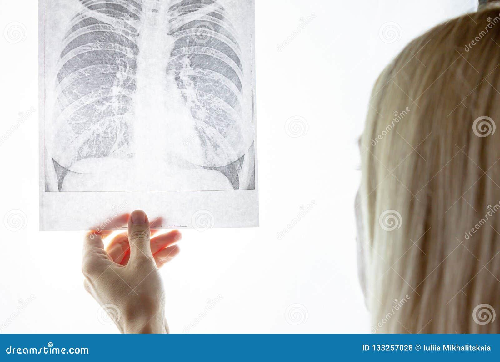 Fluorography женского доктора рассматривая, рентгеновский снимок Desease легкего и концепция обработки