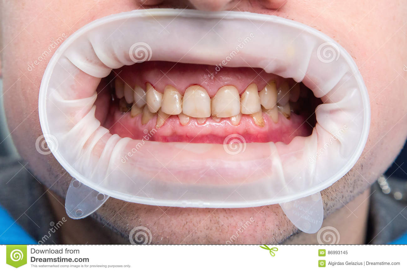 Fluorosi dentari