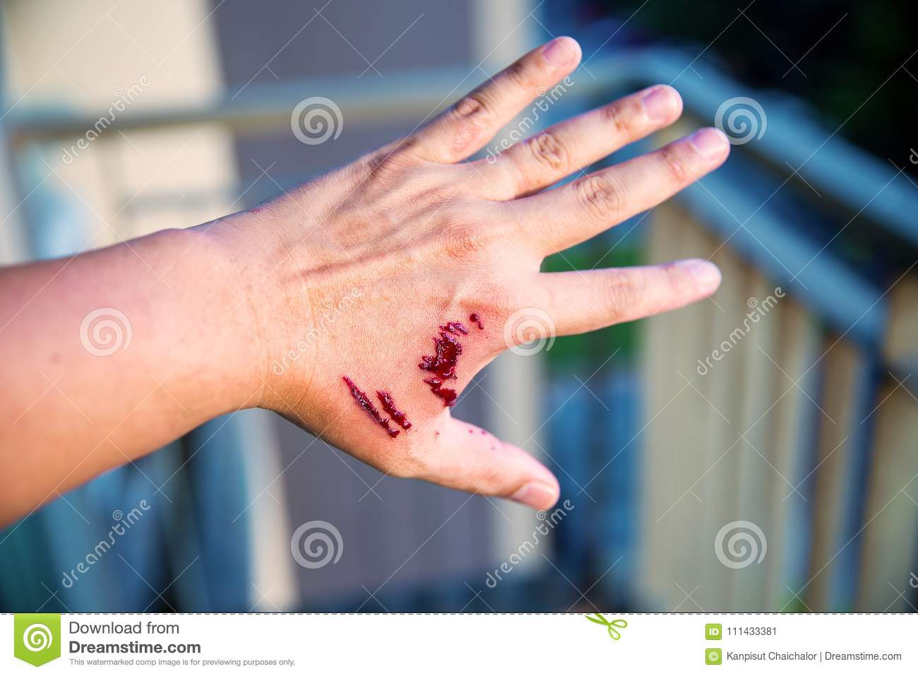 Focus dog bite wound and blood on hand. Infection and Rabies concept.