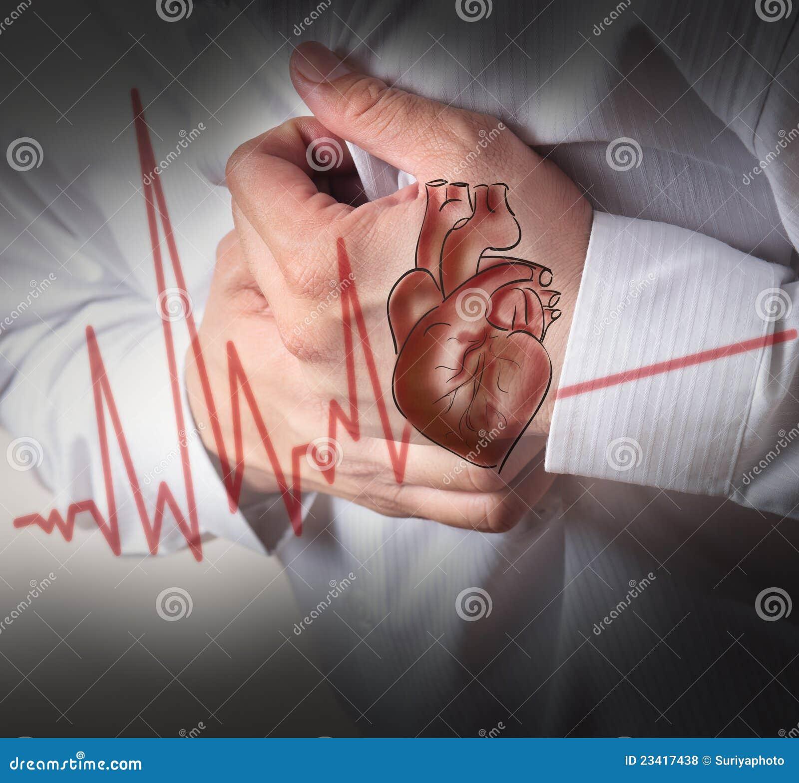 Fondo del cardiograma del ataque del corazón y de los golpes de corazón