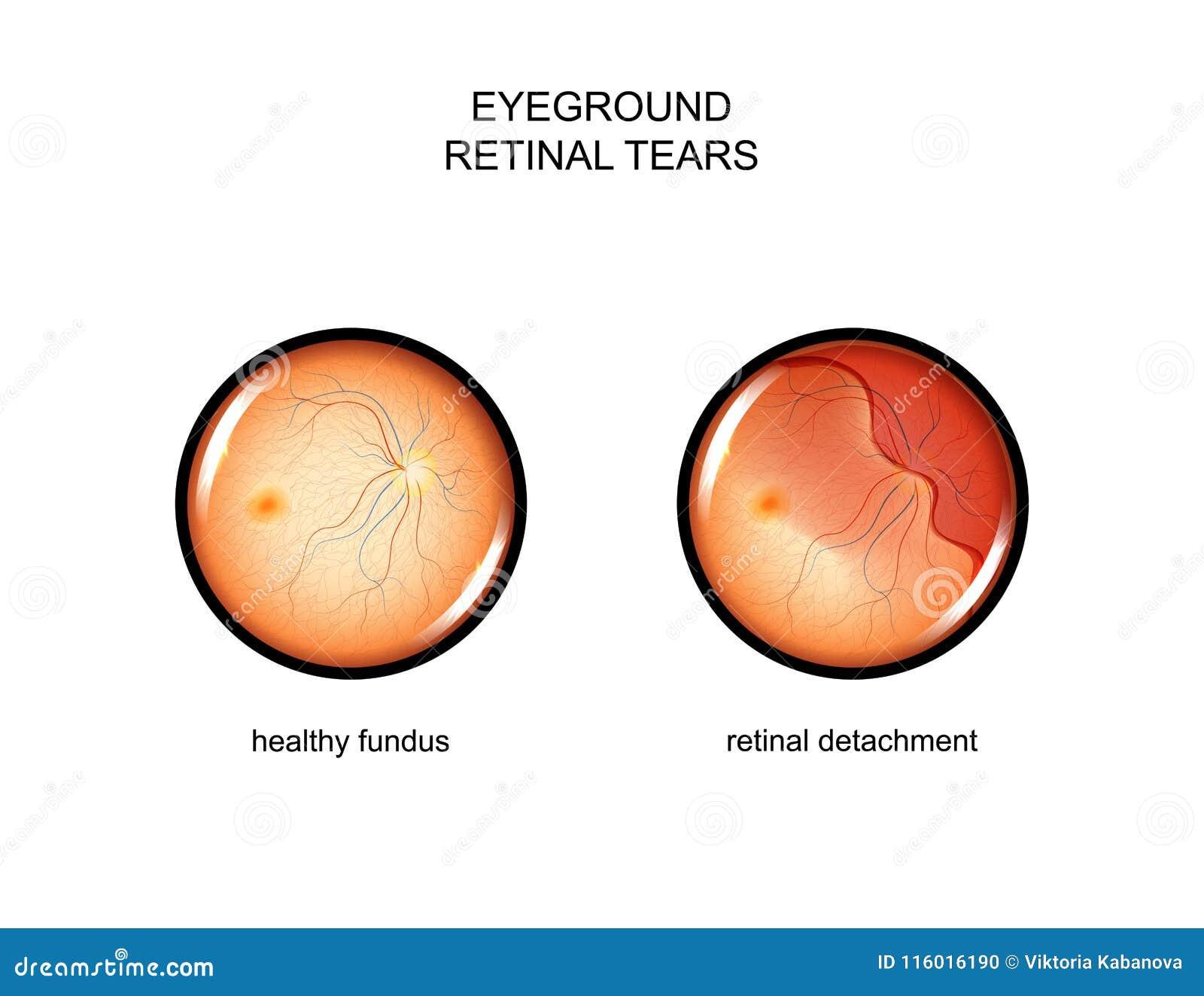 Fondo strappi retinici