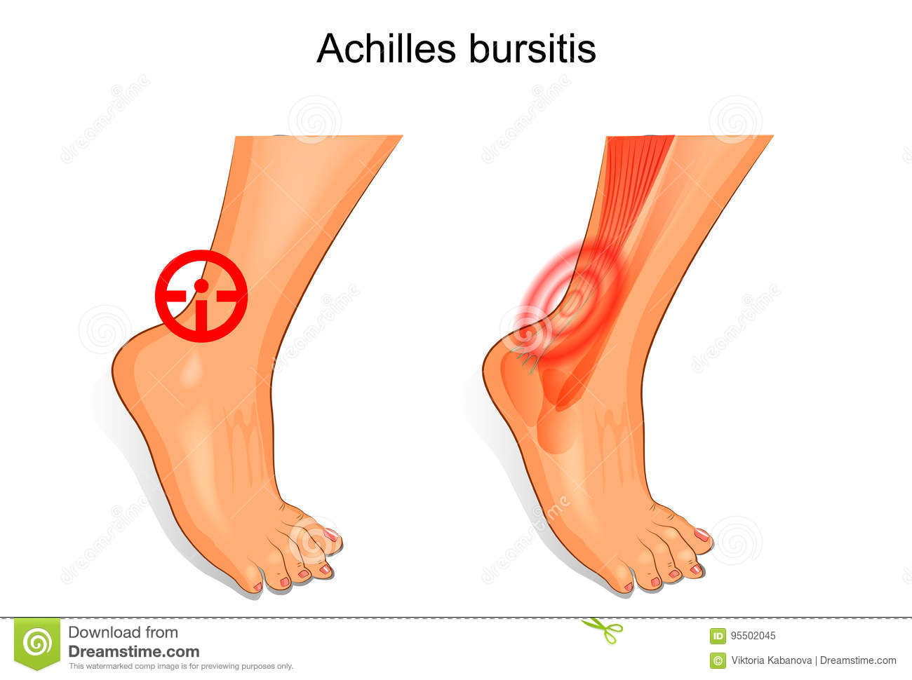 The Foot Is Affected By Achilles Bursitis Stock Vector ...