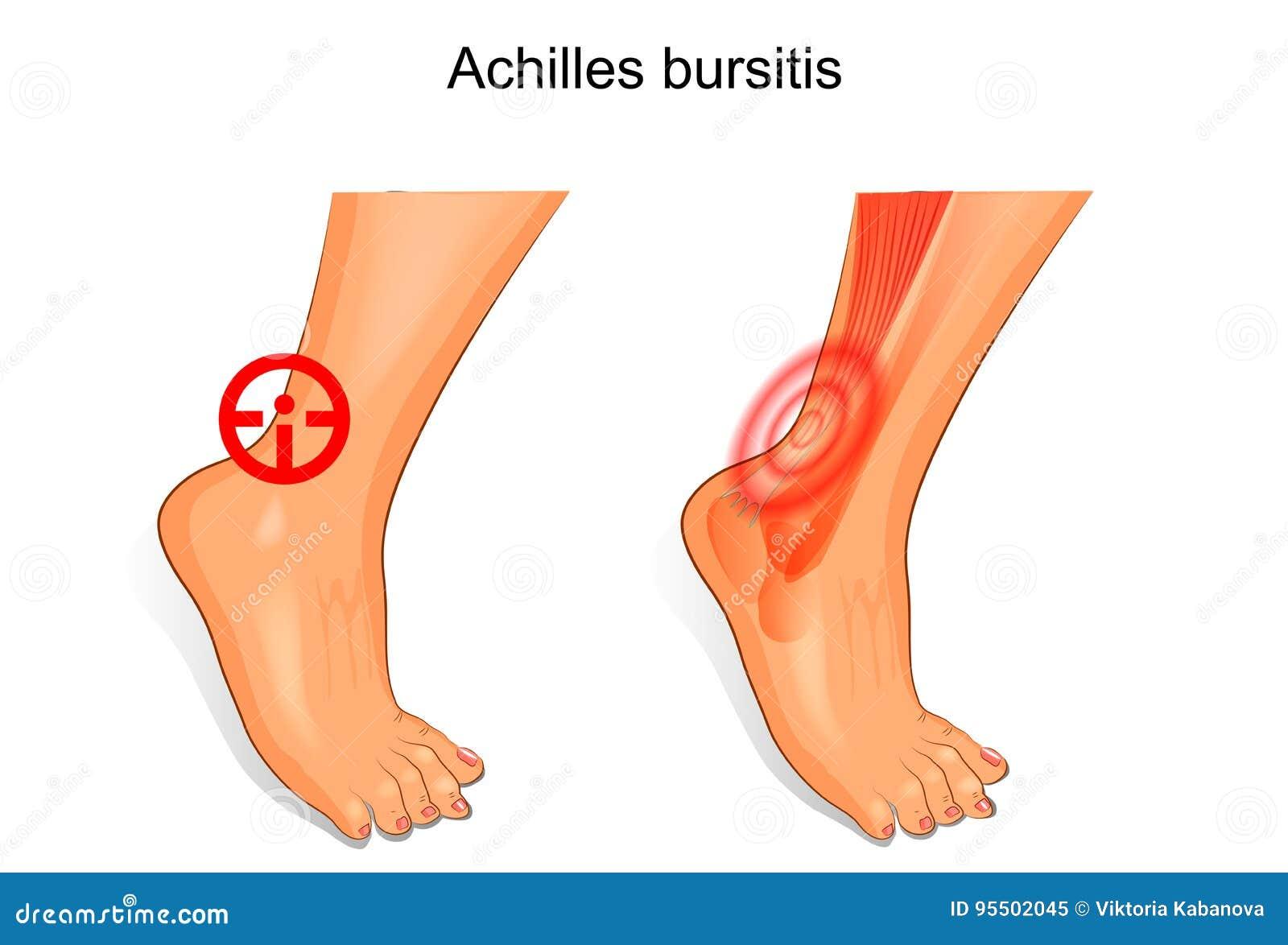 Best Shoes For Achilles Tendon Bursitis